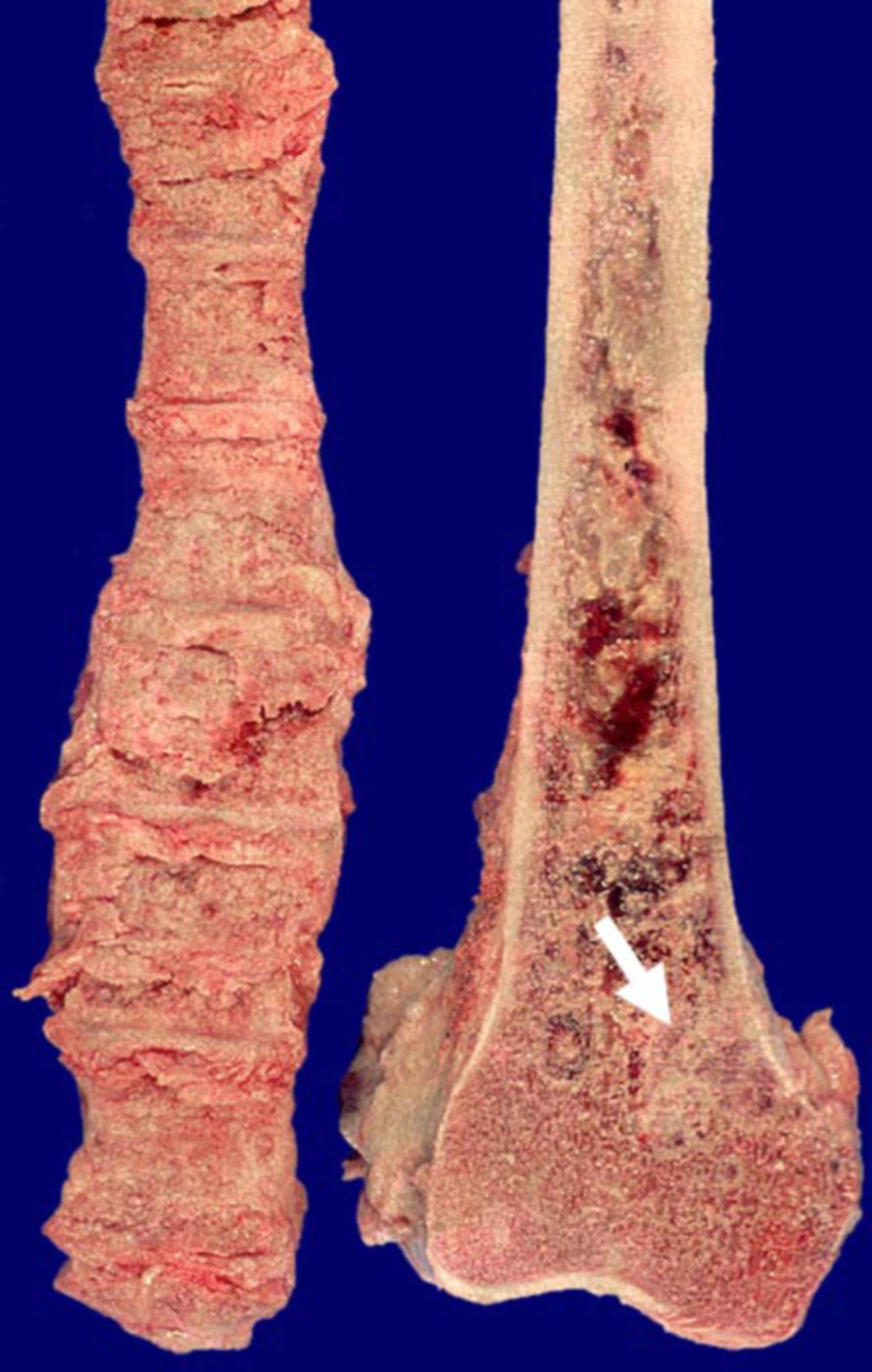 Knochenmetastasen eines Prostatakarzinoms