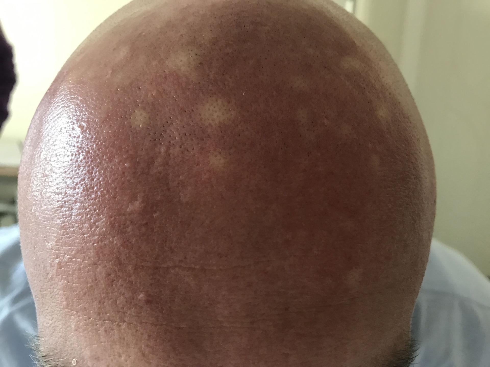 Kopfhaut weiße Flecken