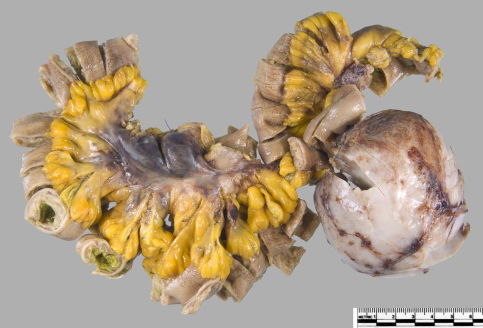 Abdominaler Desmoid-Tumor