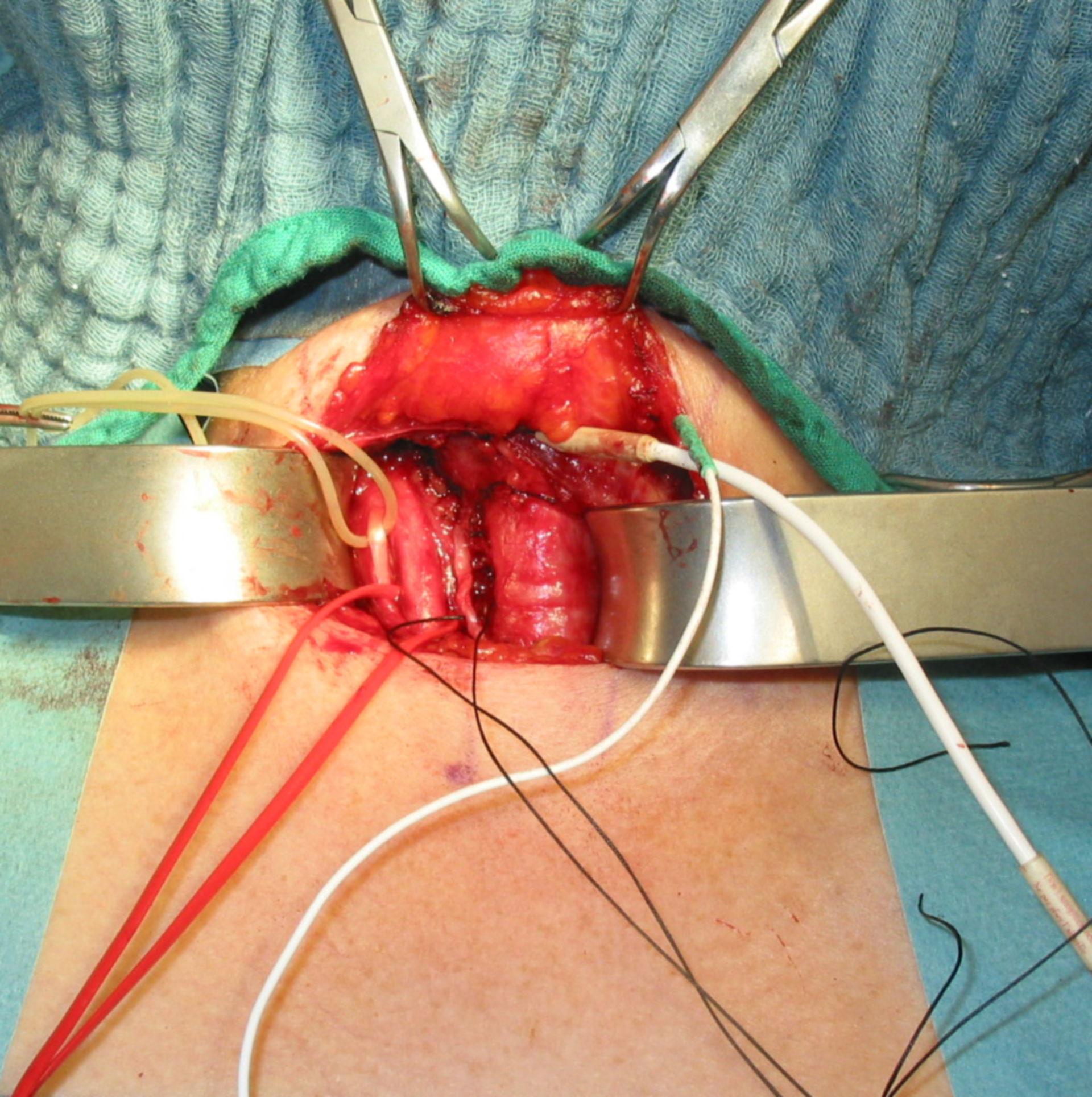 Tiroidectomia - neuromonitoring