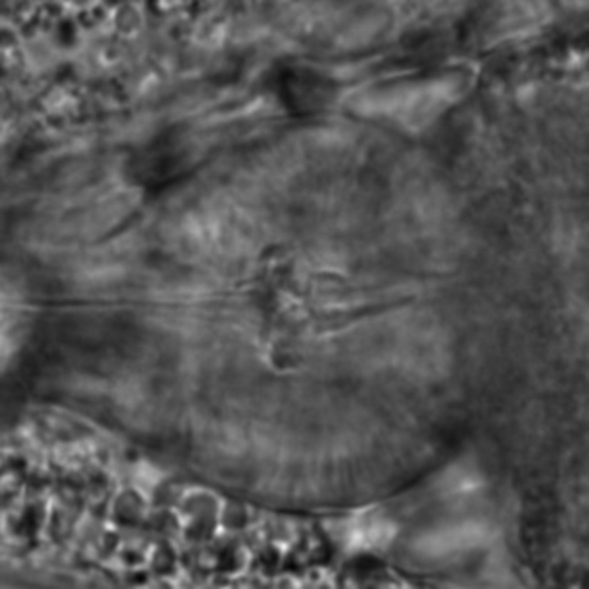 Caenorhabditis elegans - CIL:1776
