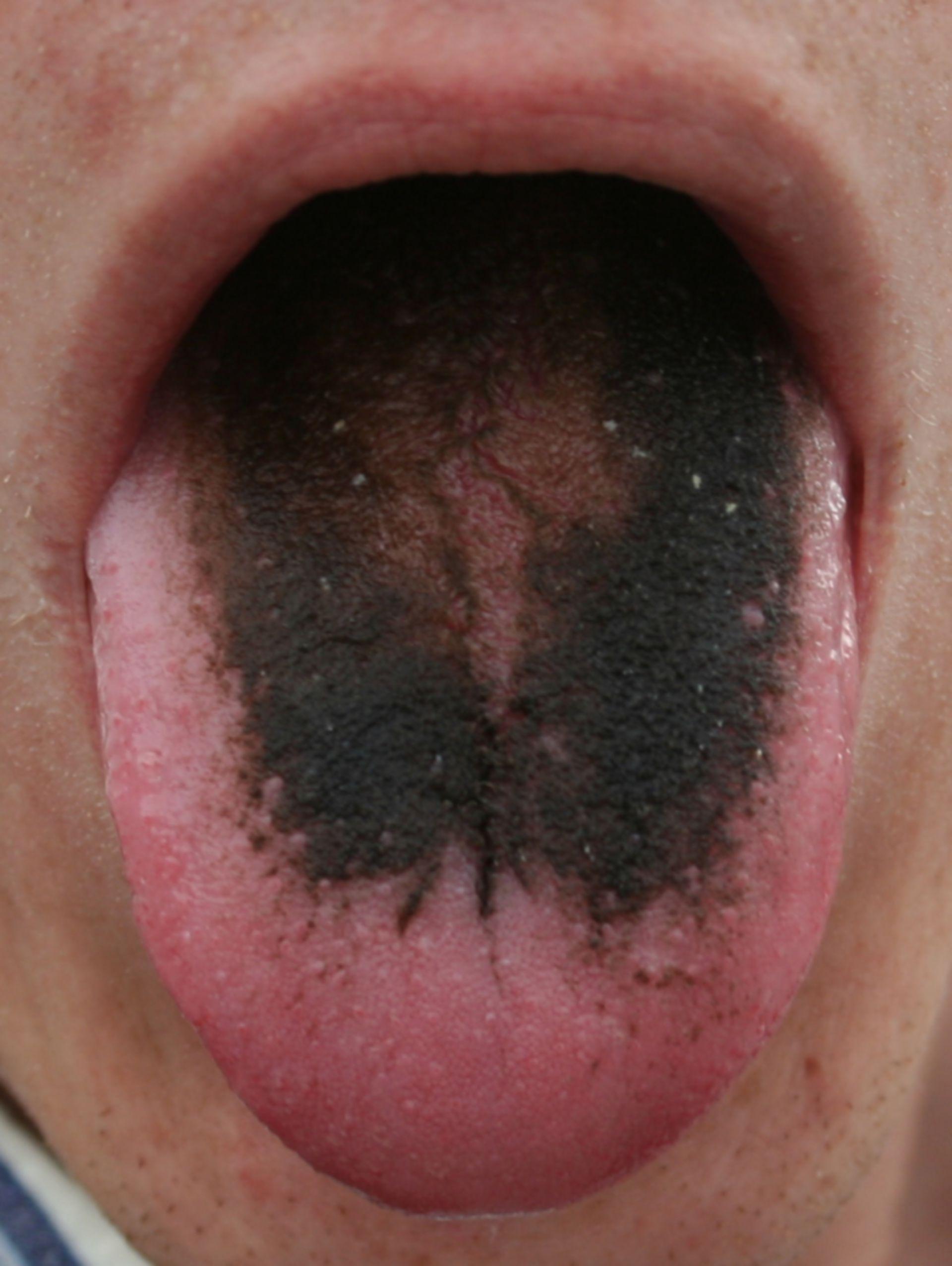 Schwarze Haarzunge (Lingua villosa nigra)