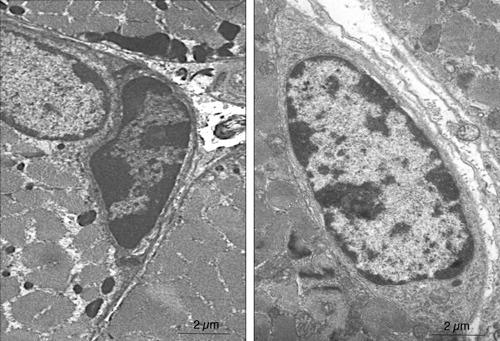 Elektronenmikroskopische Aufnahme von Muskelstammzellen. Bei Mäusen ohne Suv4-20h1 (rechts) ist das Heterochromatin weniger stark verpackt (dunkel). © MPI f. Herz- und Lungenforschung