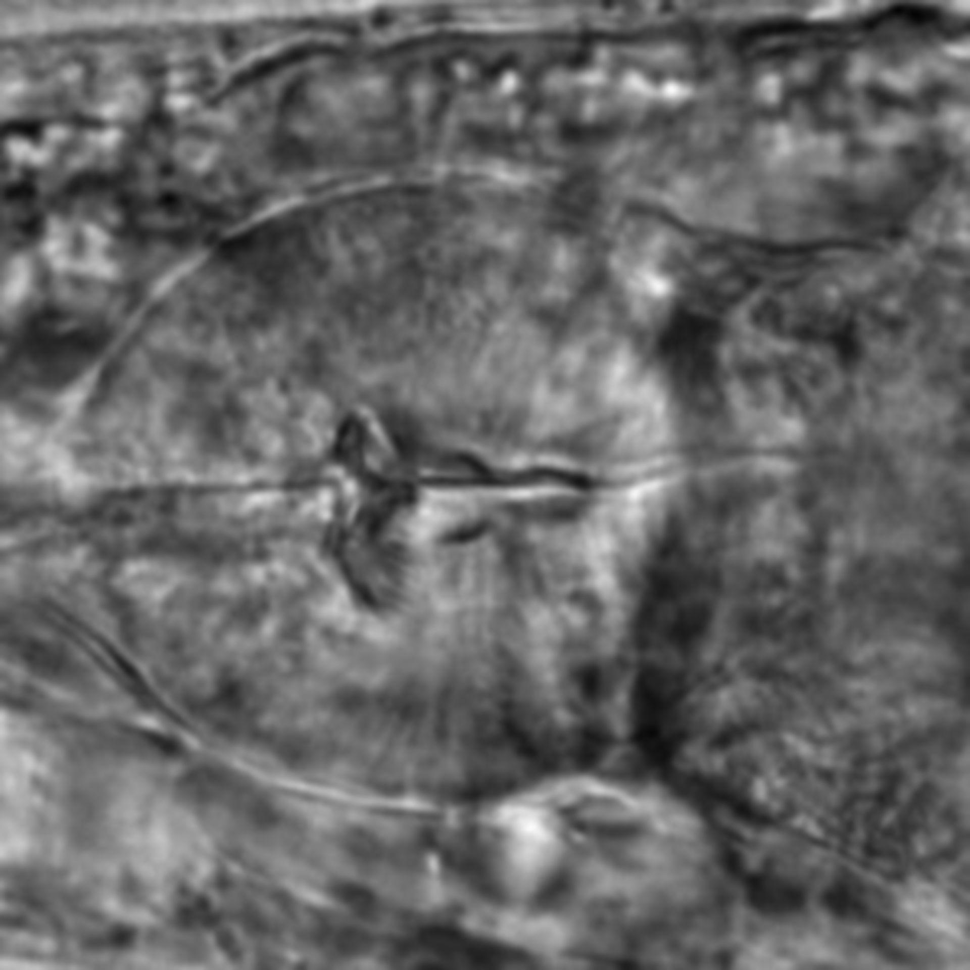 Caenorhabditis elegans - CIL:2127