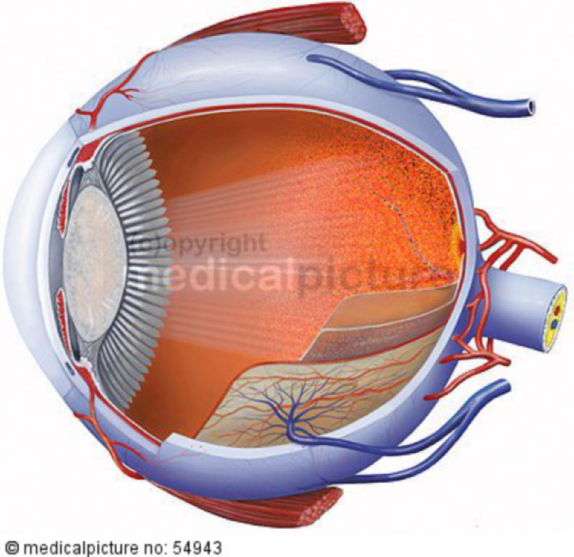 Light impacting a cataract