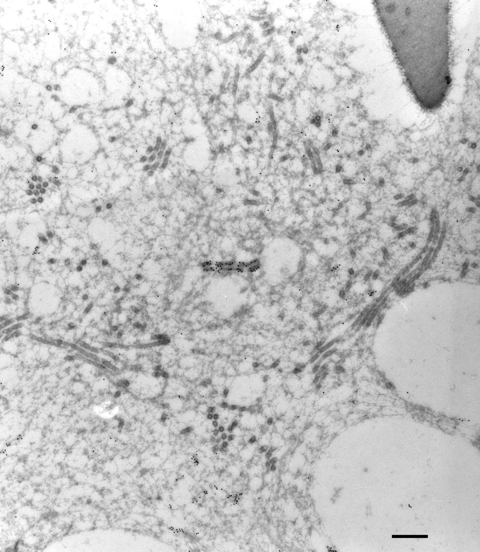 Paramecium multimicronucleatum (Cytoplasmic microtubule) - CIL:27152