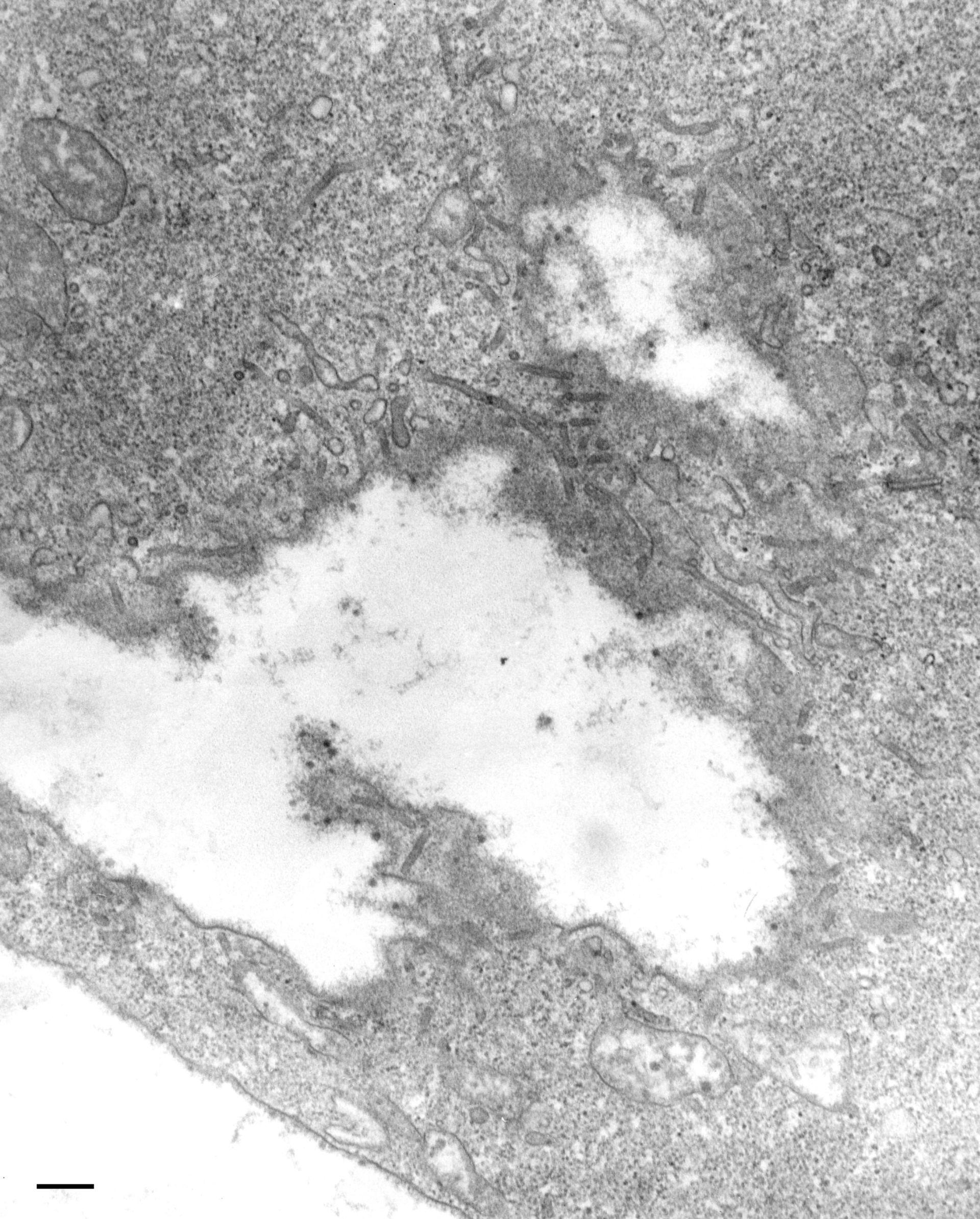 Paramecium multimicronucleatum (Phagolysosome) - CIL:36752