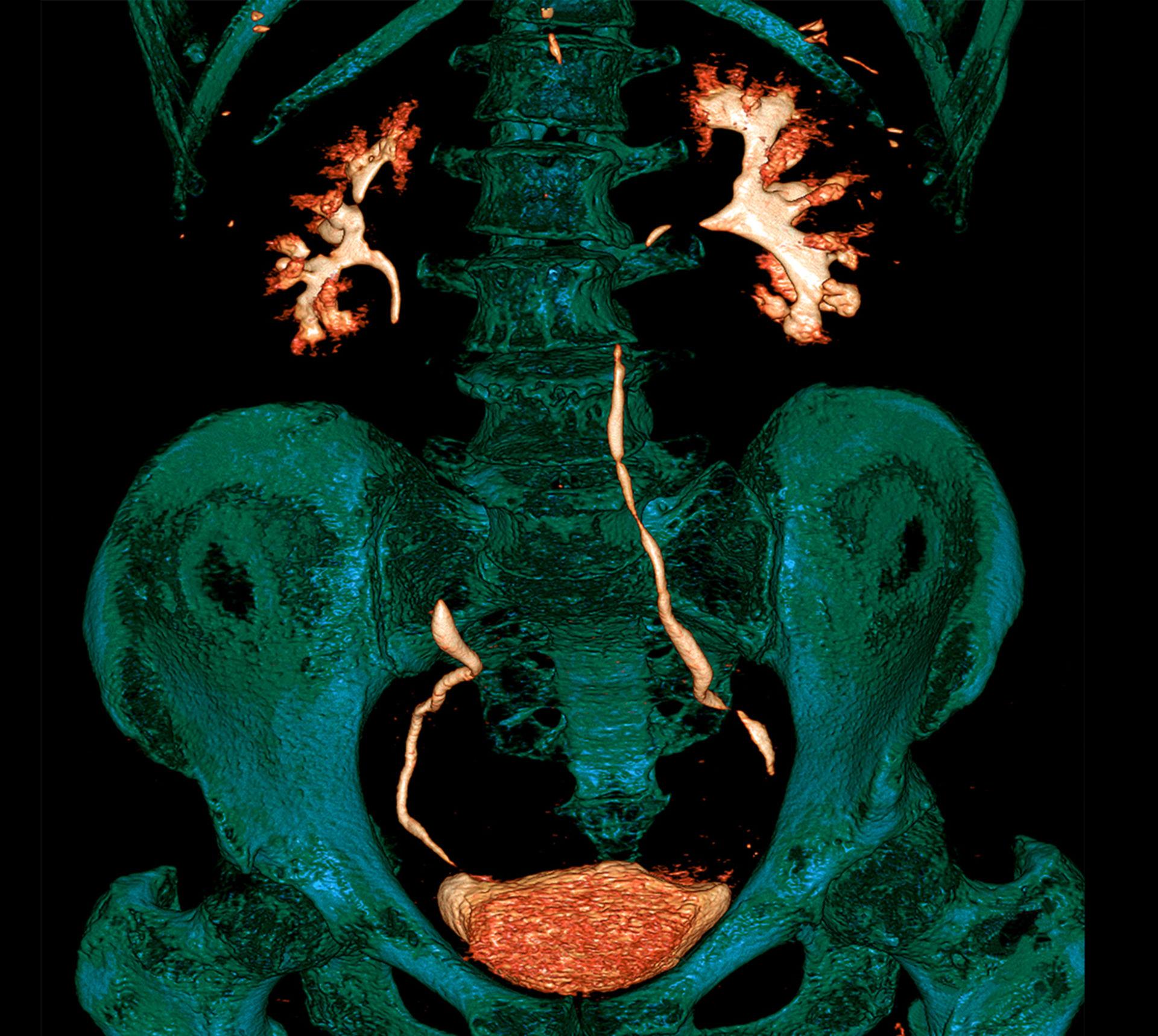 """Tercera competición de imágenes de tomografía computada - """"Right Dose image Contest"""" (categoría: examen de rutina)"""