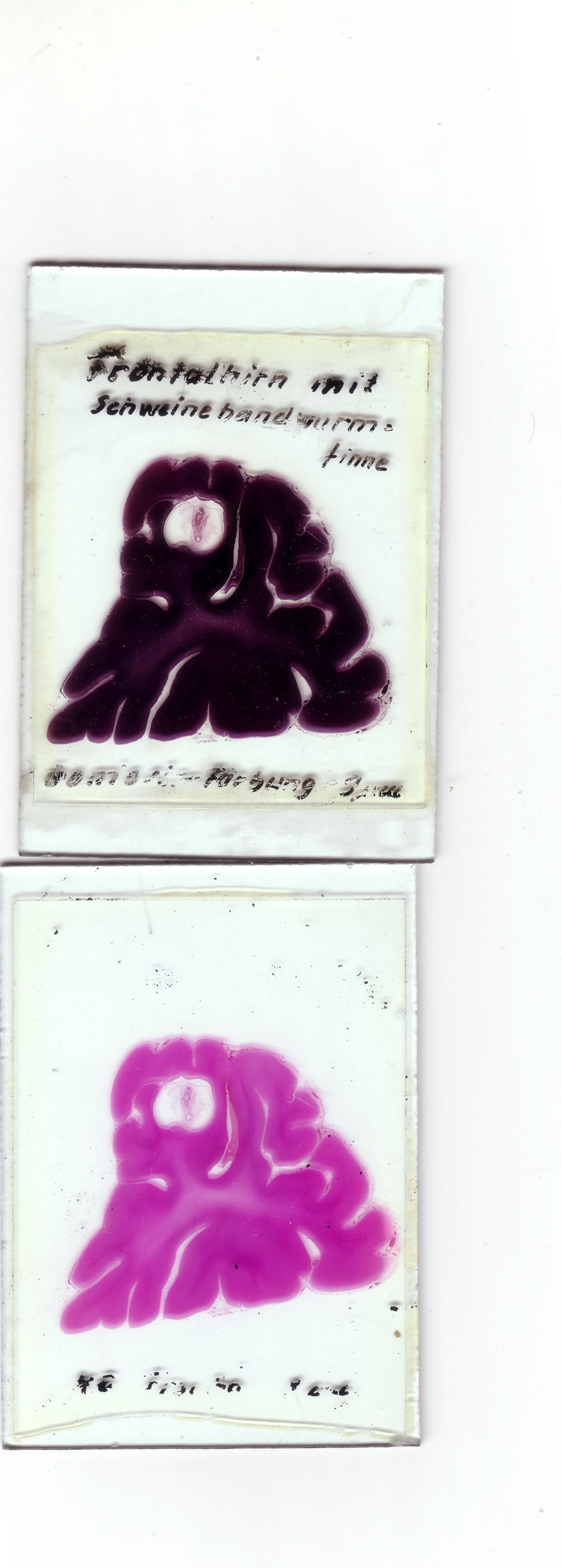 Frontalhirn, Schweinebandwurmfinne, Gomori- u. HE-Färbung