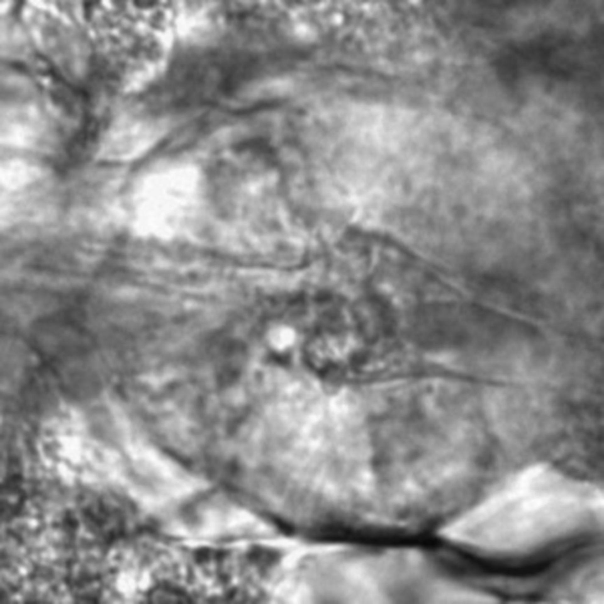 Caenorhabditis elegans - CIL:2235