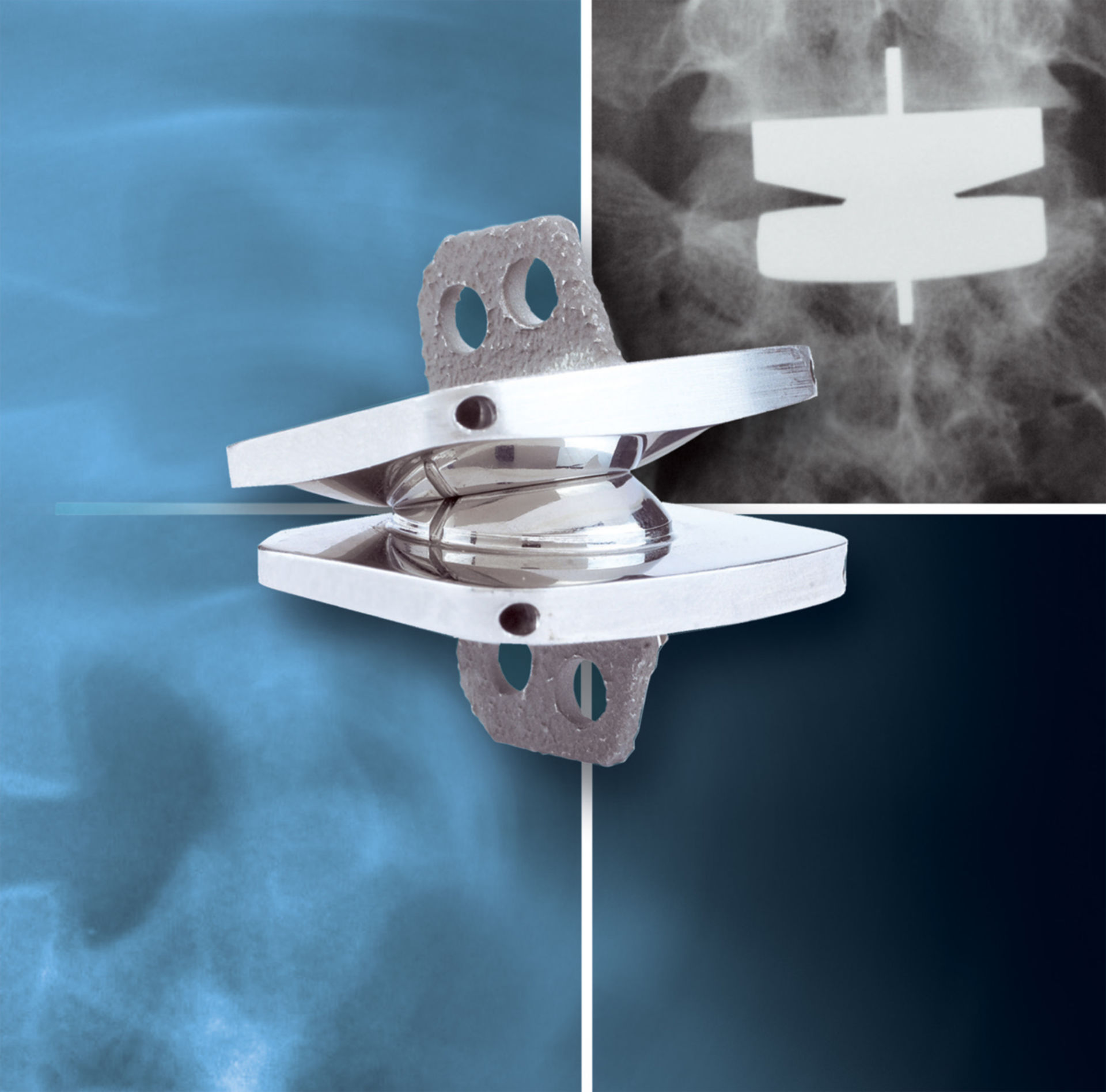 Spinal disk implant