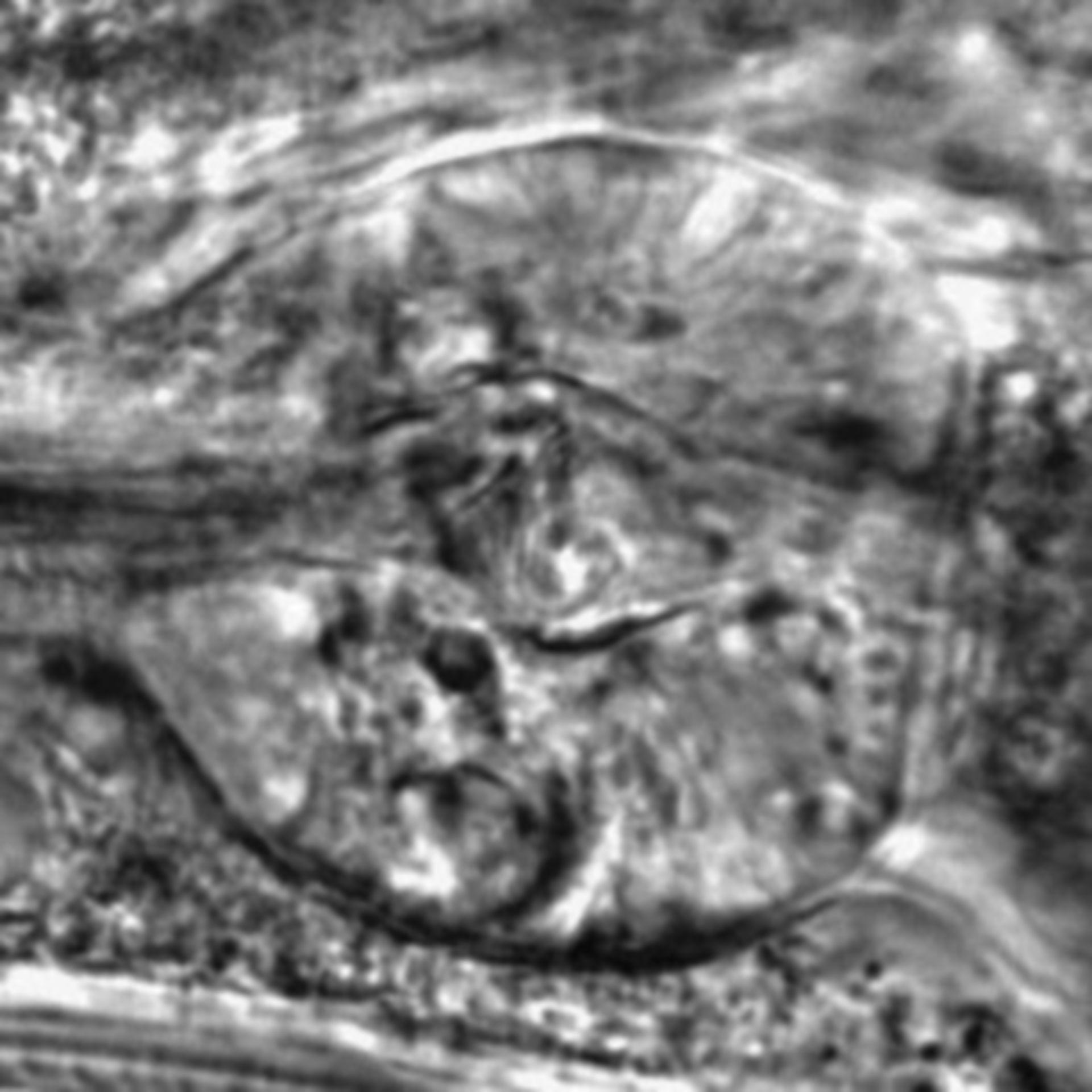 Caenorhabditis elegans - CIL:2804