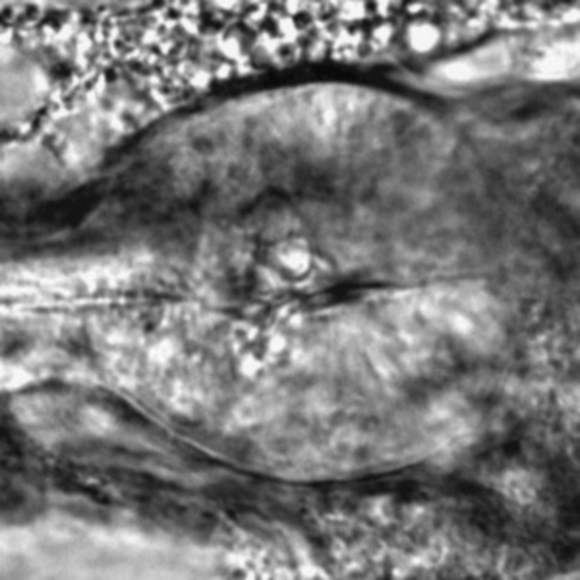 Caenorhabditis elegans - CIL:2311