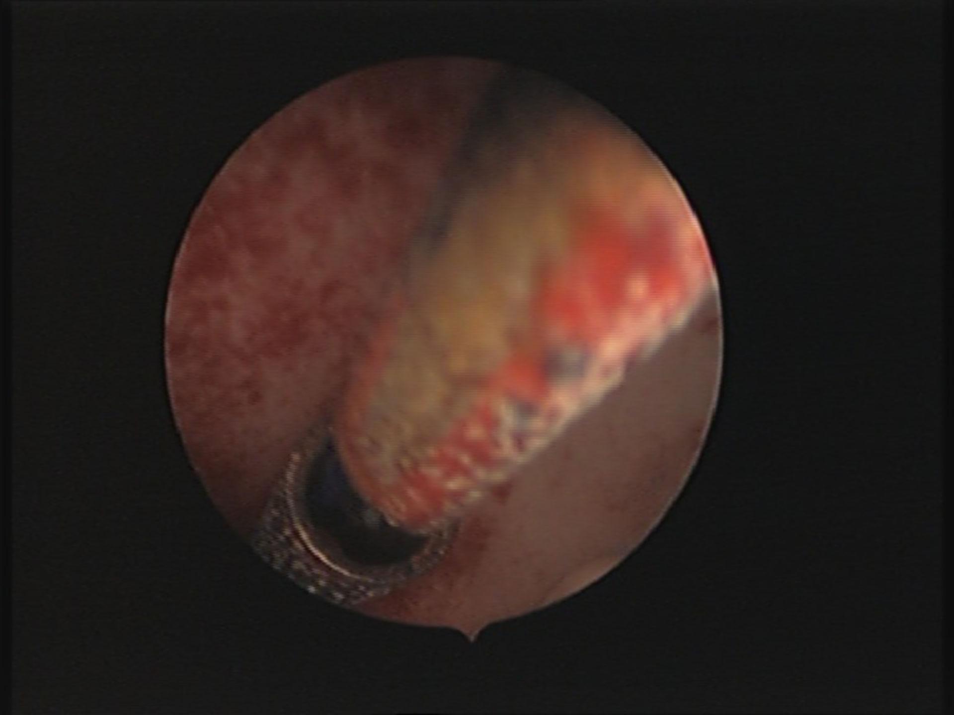 "Hysteroskopie ambulant Frauenarzt Berlin-Mitte : Kupferkette Gynefix intrauterin ""lost Gynefix"""