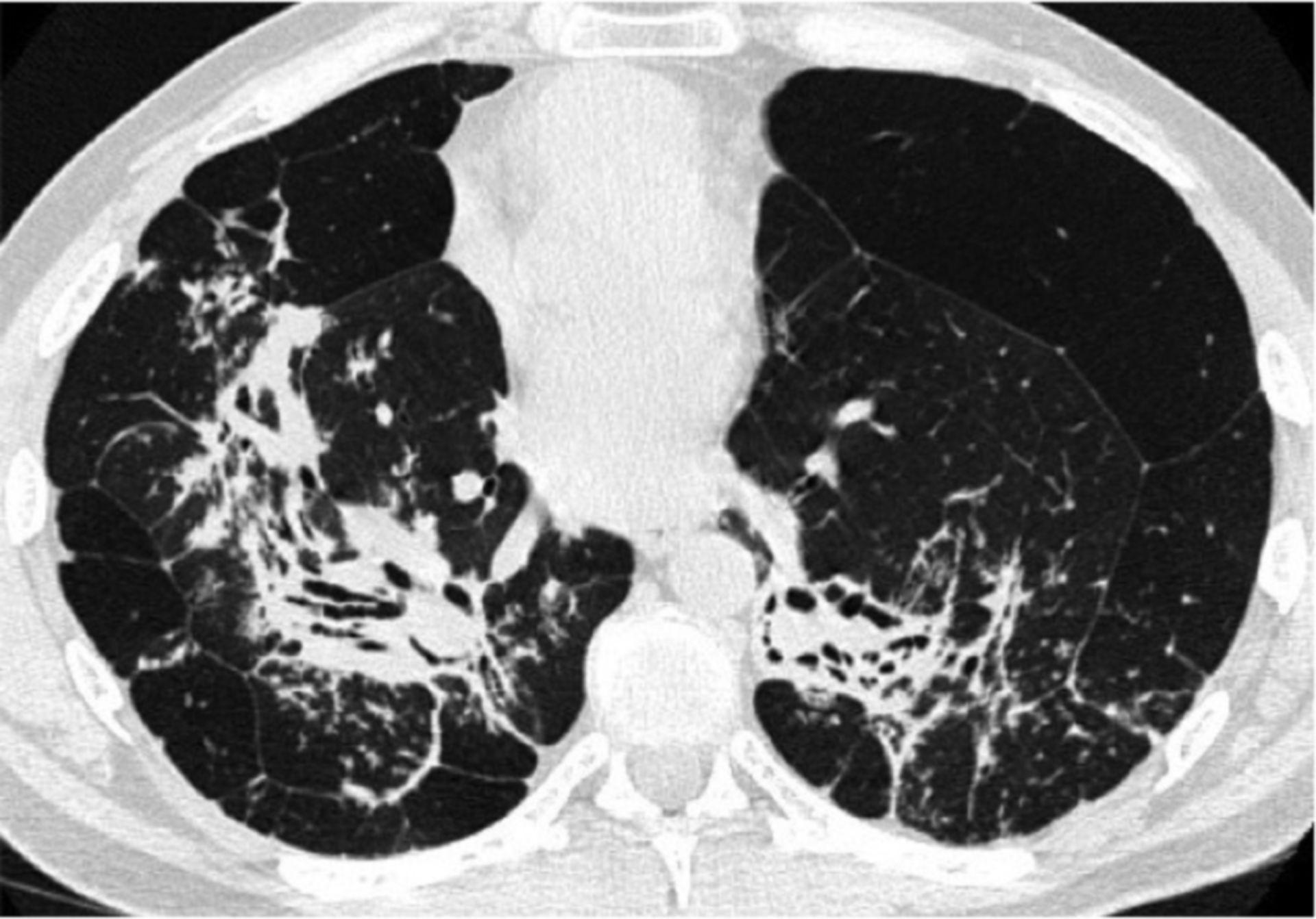 Sarkoidose im Röntgenstadium IV