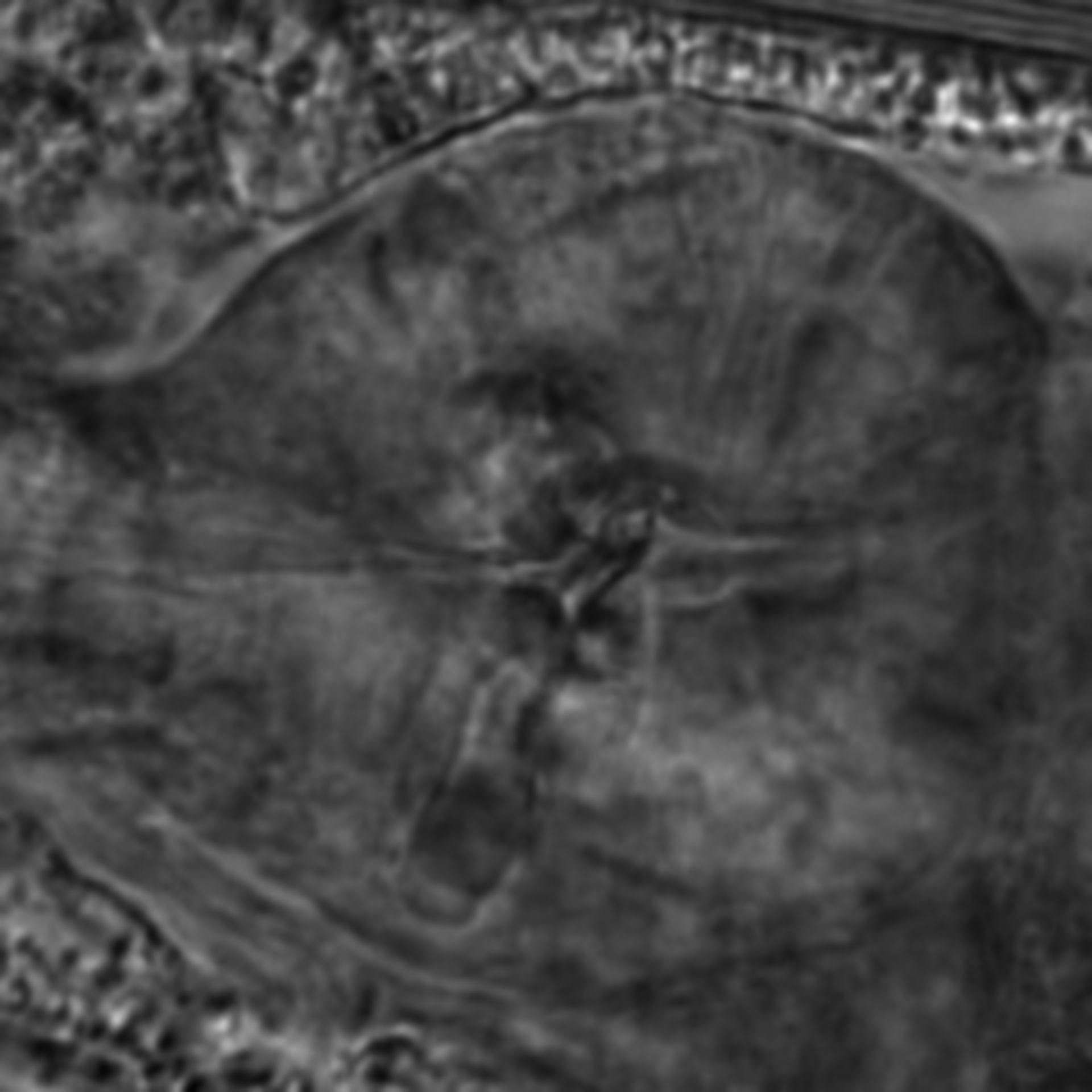 Caenorhabditis elegans - CIL:2821