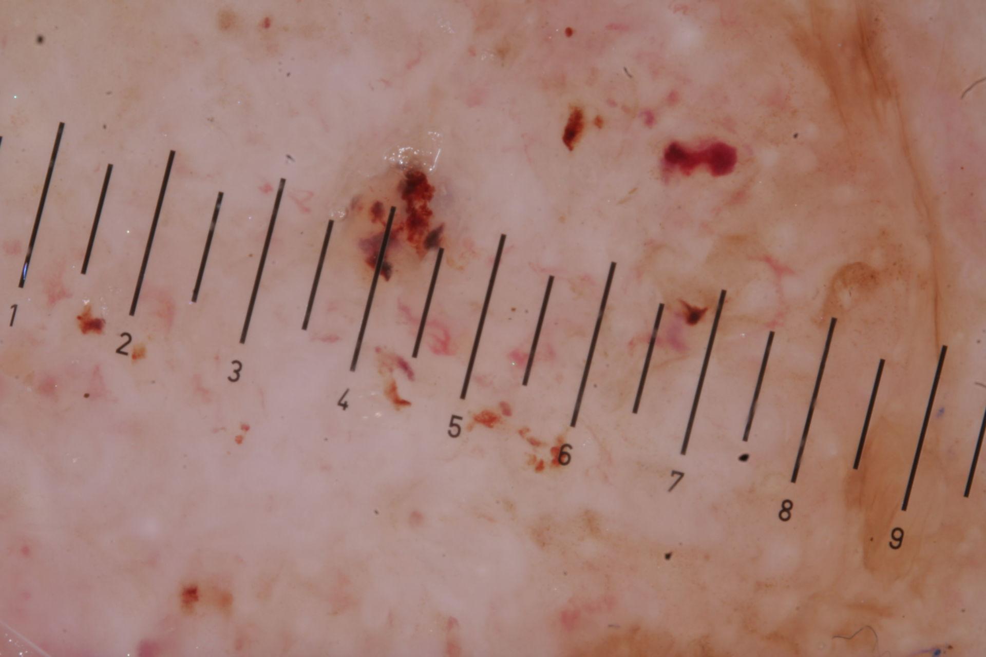 Basaliom dermatoskopisch