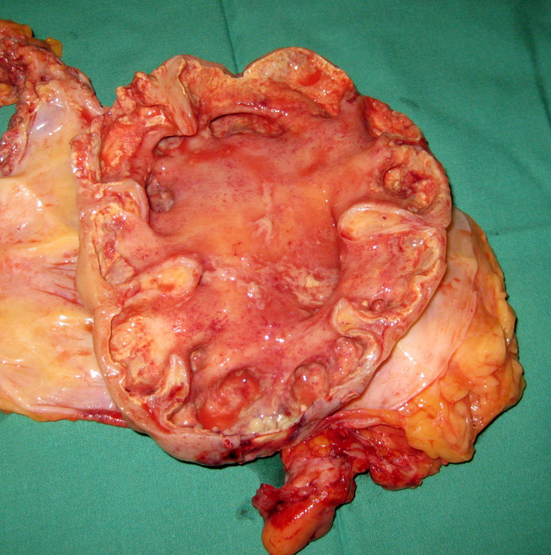 Pyonephrosis - cross-section