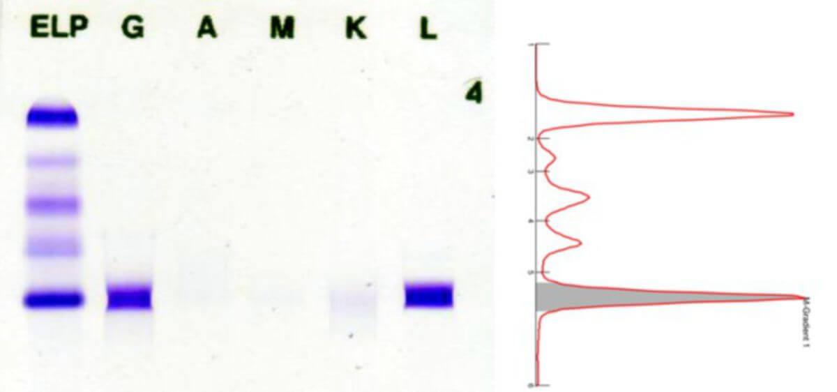 Beispiel einer Immunfixation bei ausgeprägtem M-Gradienten. Ausführliche Erläuterung bei der Bilddatei.