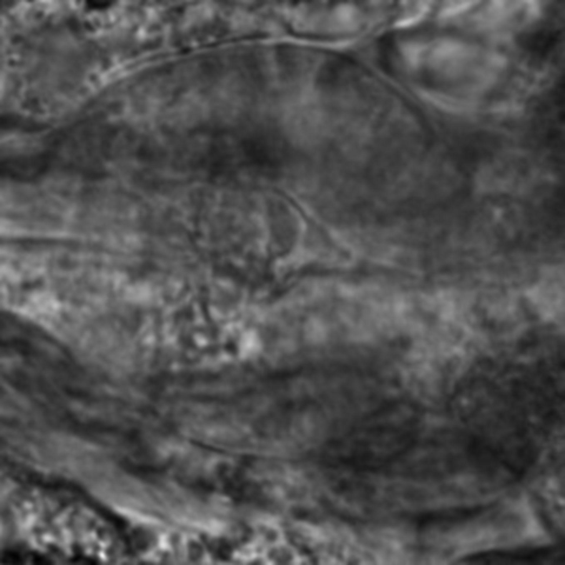 Caenorhabditis elegans - CIL:2151