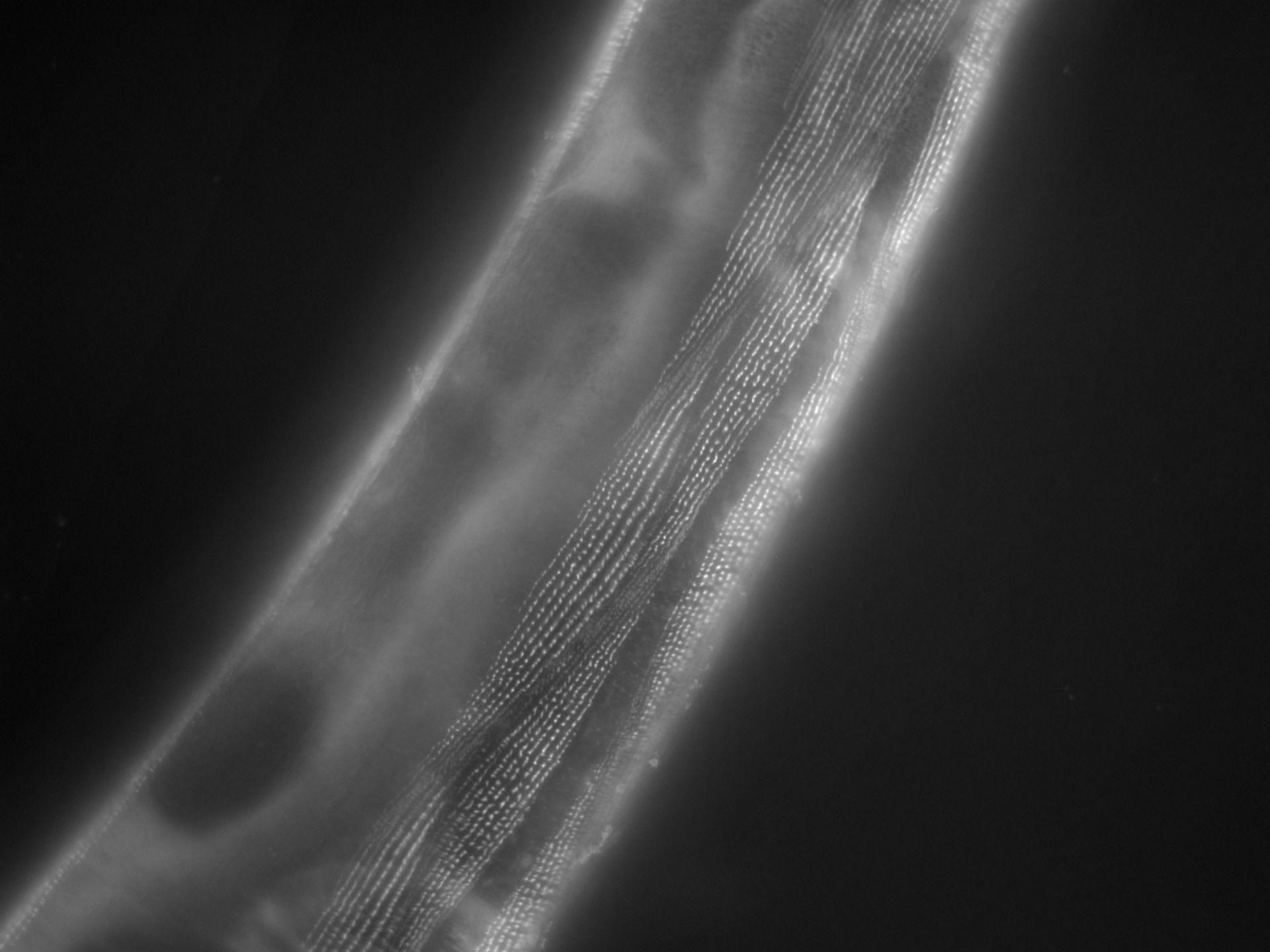 Caenorhabditis elegans (filamento di actina) - CIL:1170