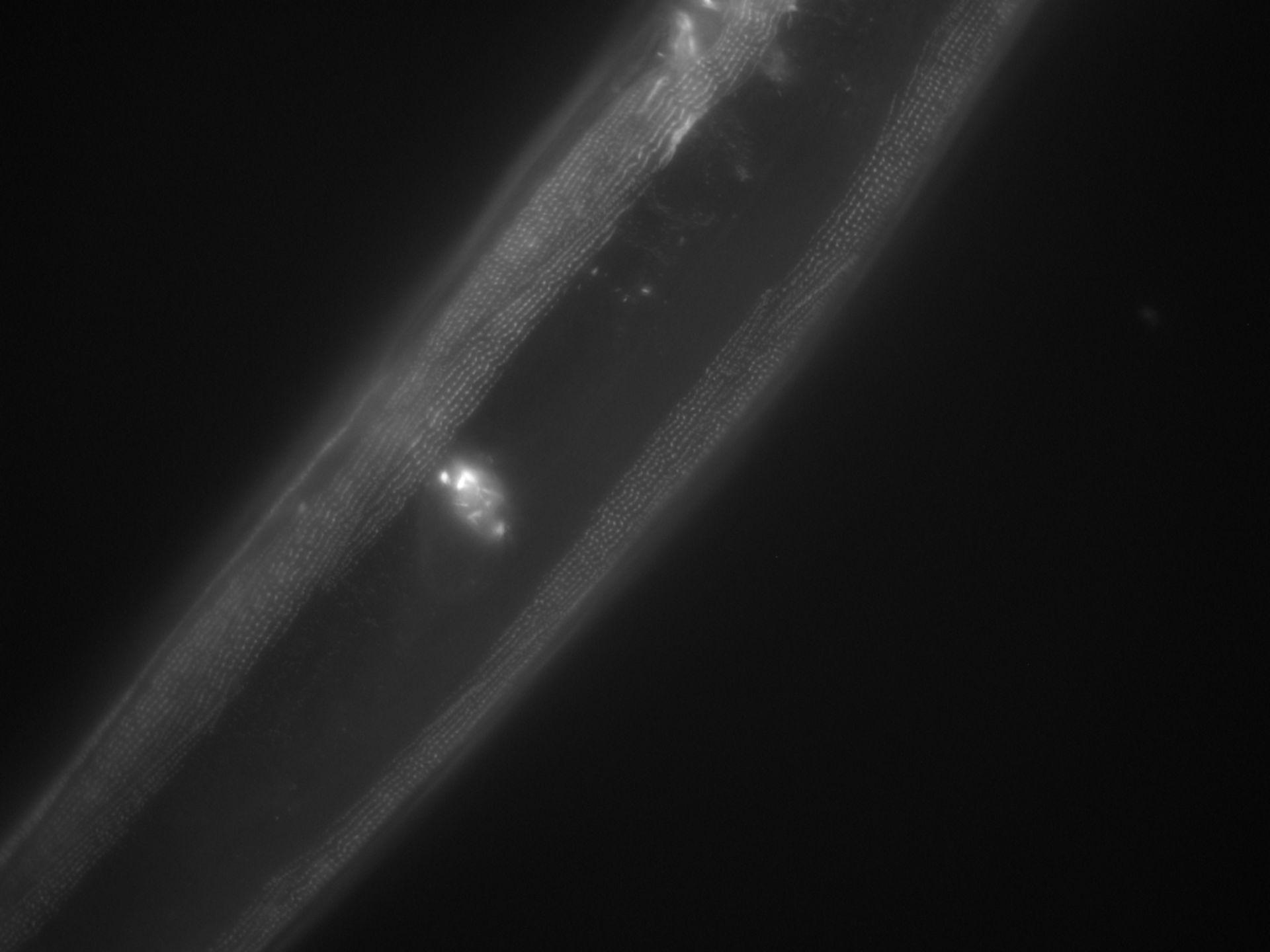 Caenorhabditis elegans (Actin filament) - CIL:1030