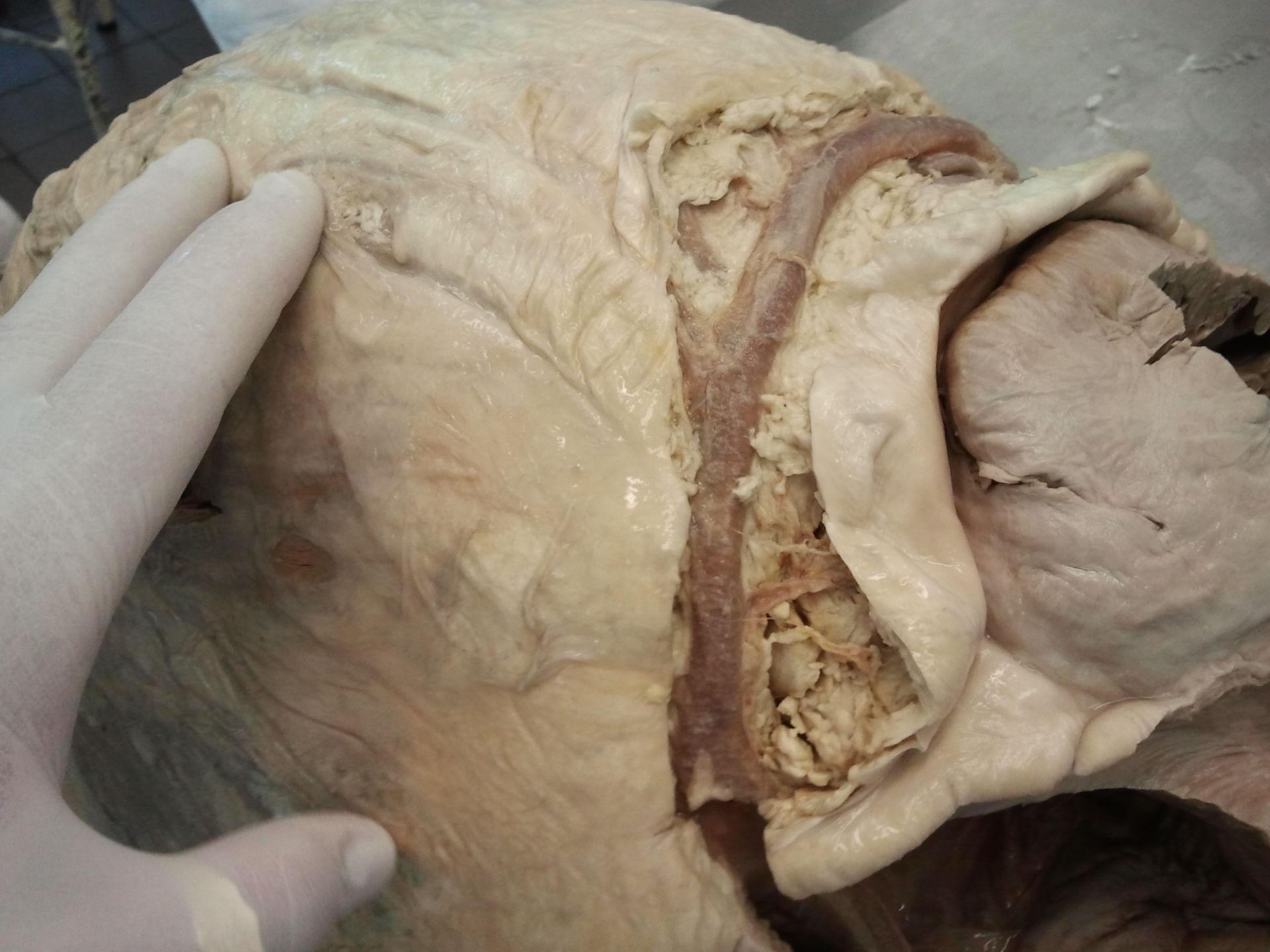 Coronary artery of elephant's heart 3
