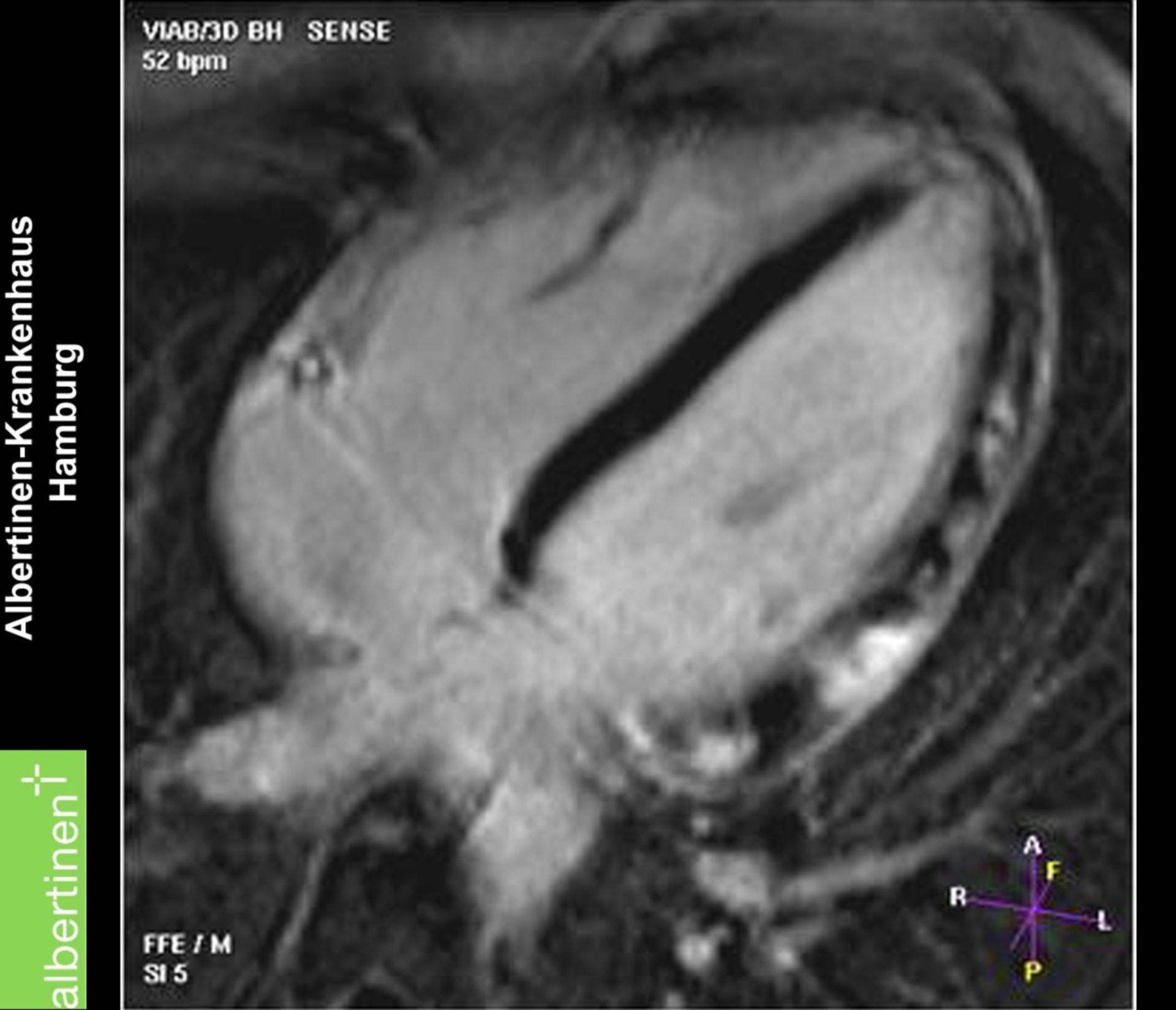 Myokarditis (MRT)