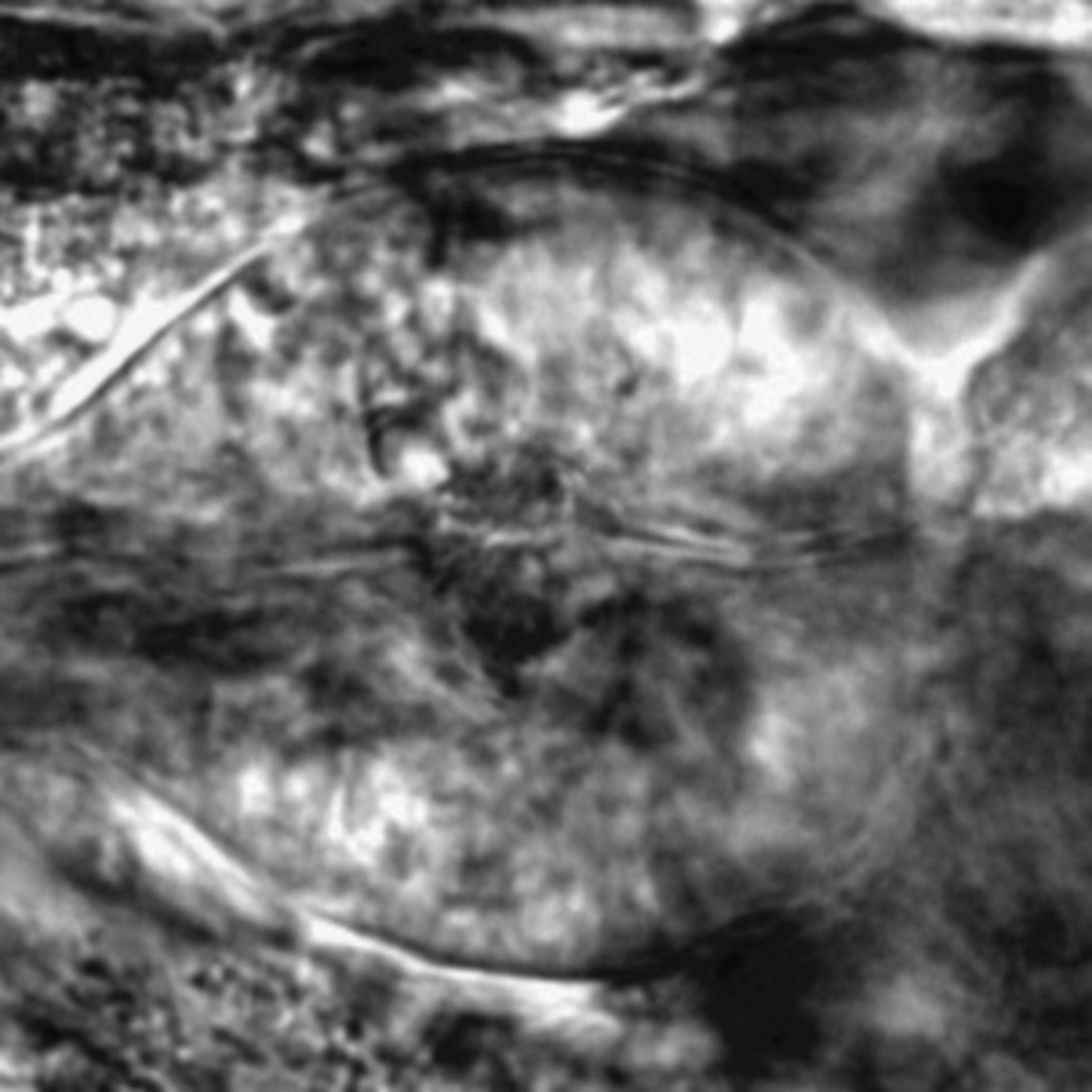 Caenorhabditis elegans - CIL:2712