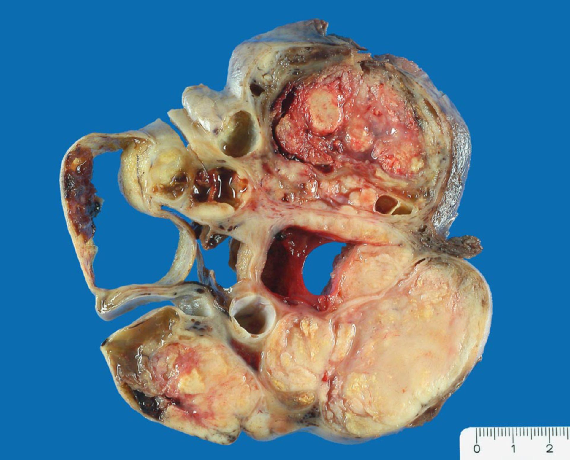 Serous papillary cystadenocarcinoma of the ovary