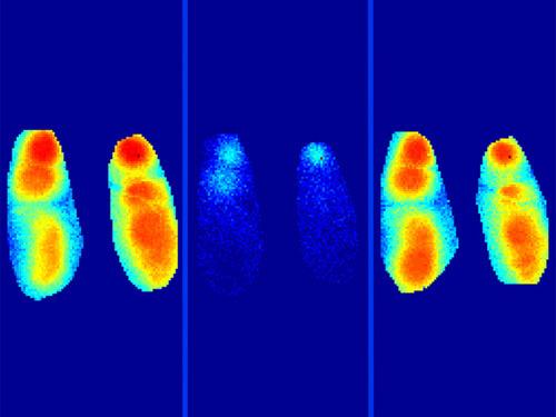 Langsame Wellen im Gehirn breiten sich beim Schlafen normal aus (links). Durch Amyloid-β-Plaques wird der Prozess gestört (Mitte), was durch Gabe eines Benzodiazepins behoben werden kann (rechts). © Marc Aurel Busche / TUM