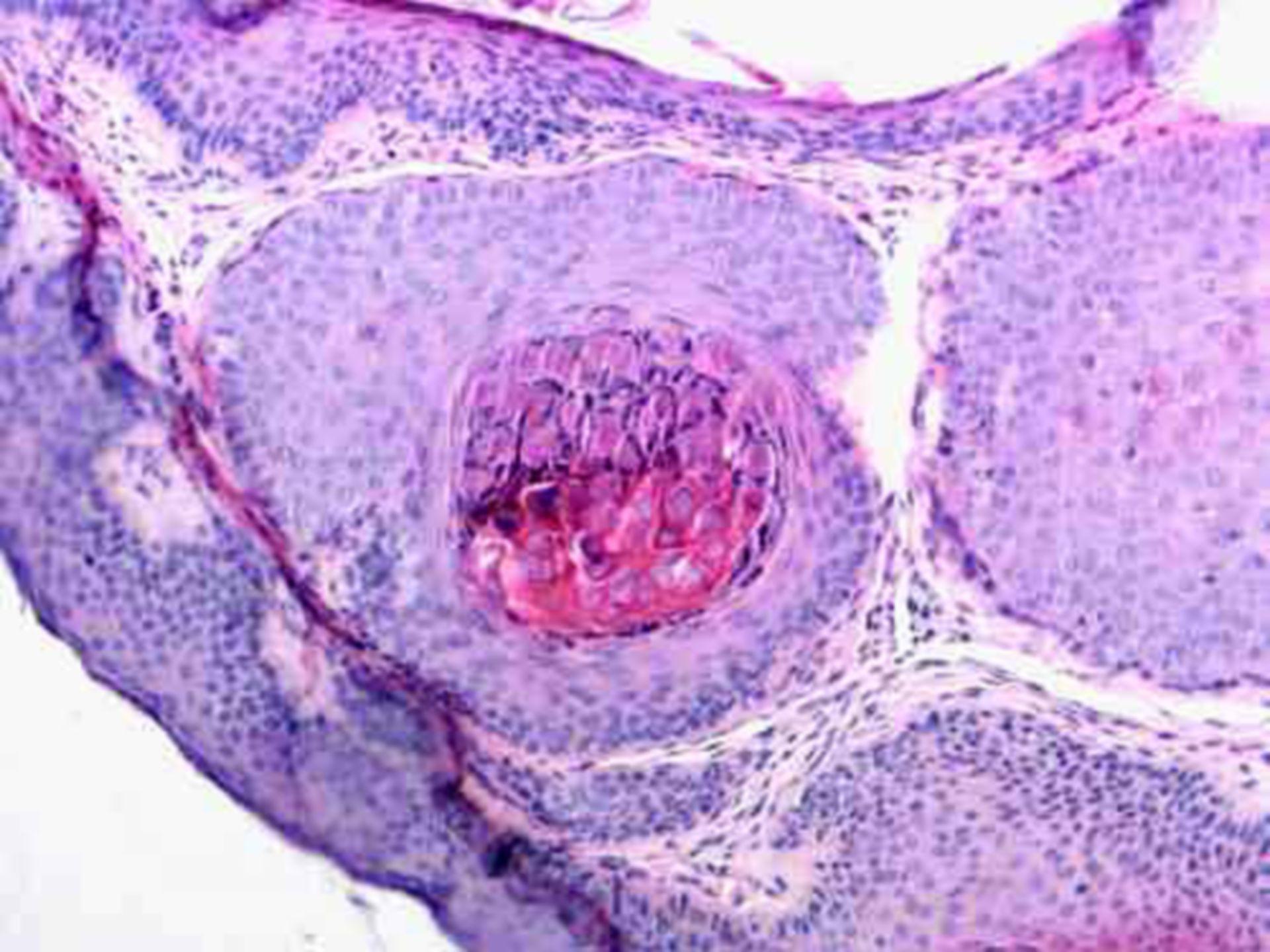 Molluscum contagiosum (histology)