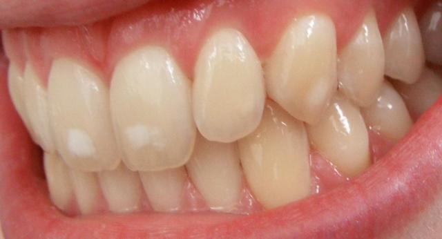 Zahnfluorose