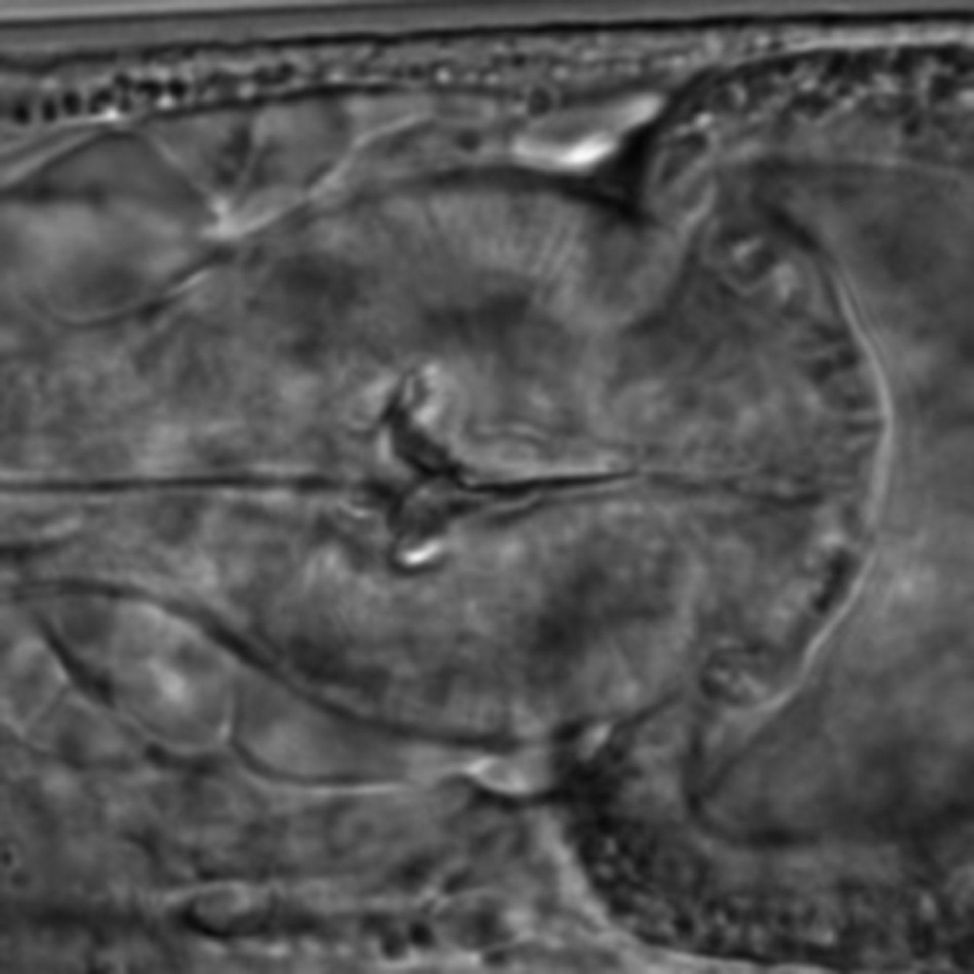 Caenorhabditis elegans - CIL:1606
