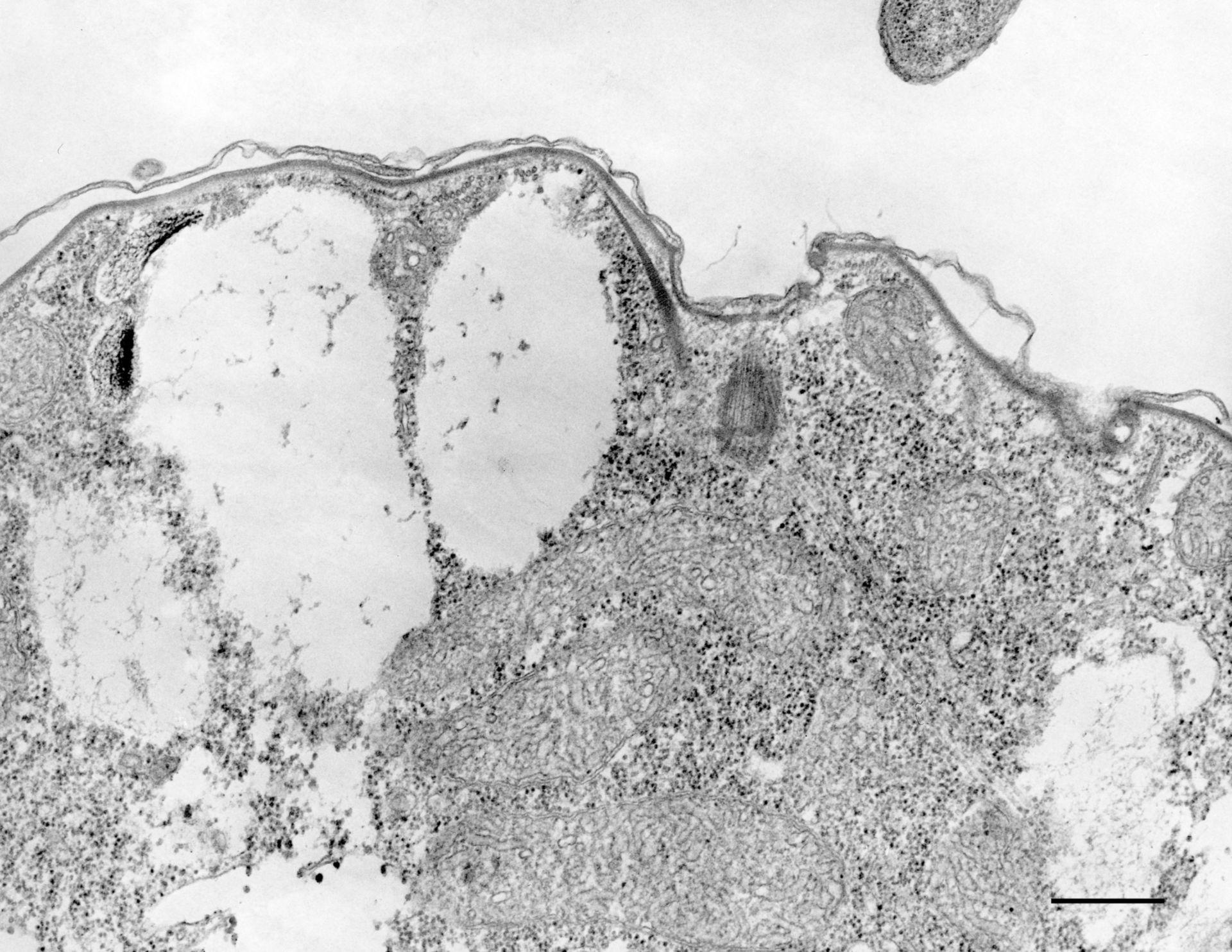 Colpoda cucullus (Epiplasm) - CIL:12110