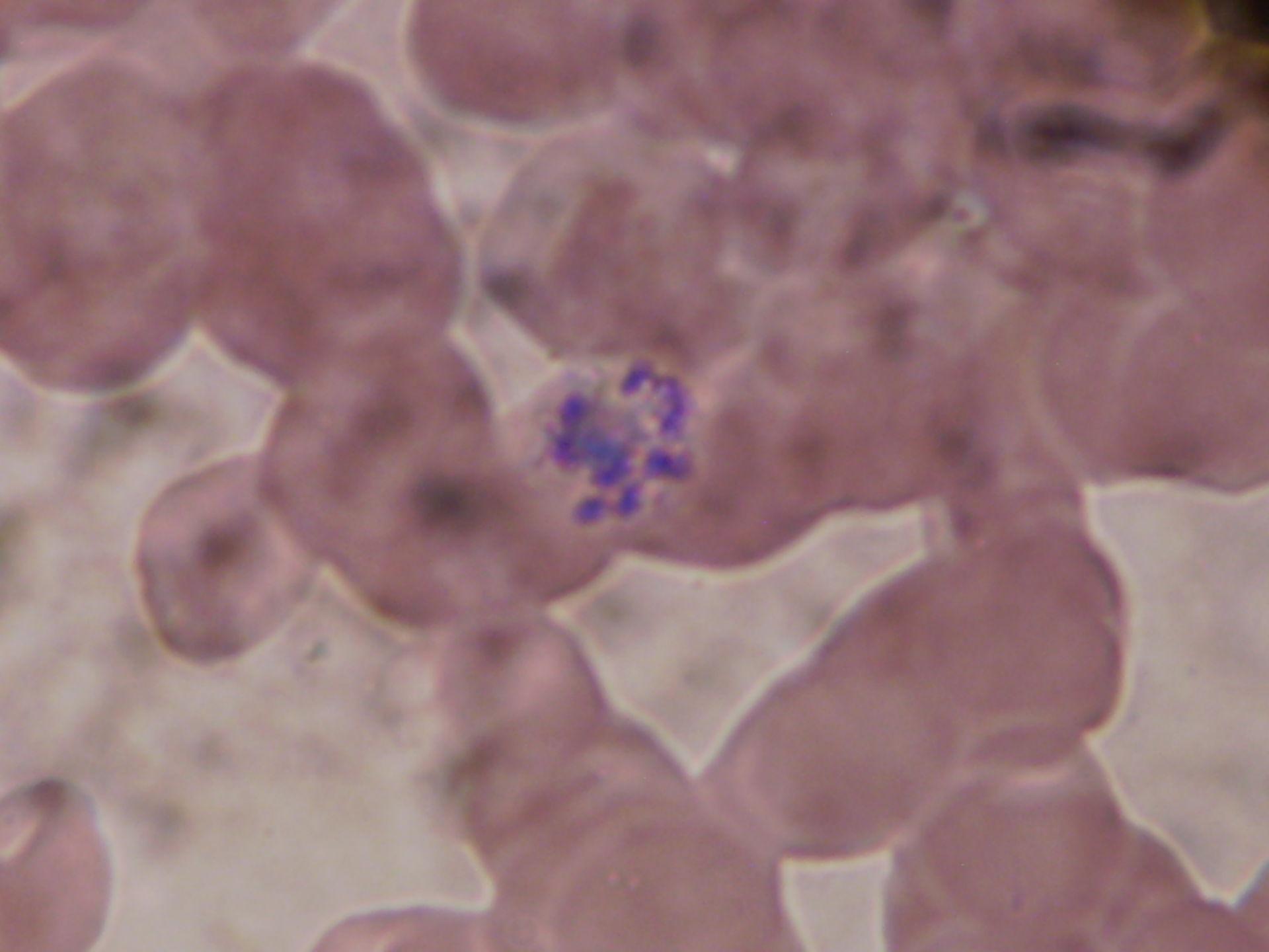Plasmodium malariae Schizont f
