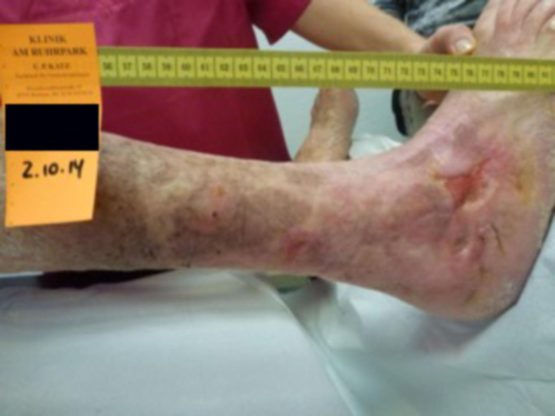 Úlcera de la pierna - abierta por 40 años (27)