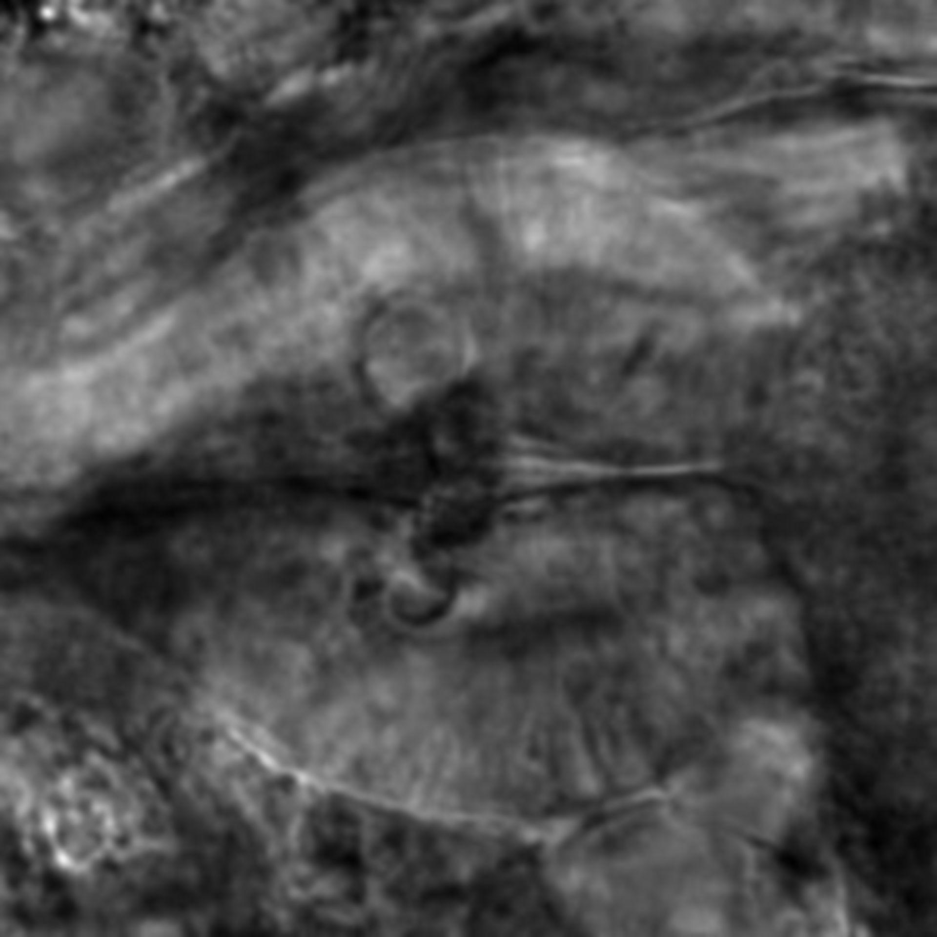 Caenorhabditis elegans - CIL:1909