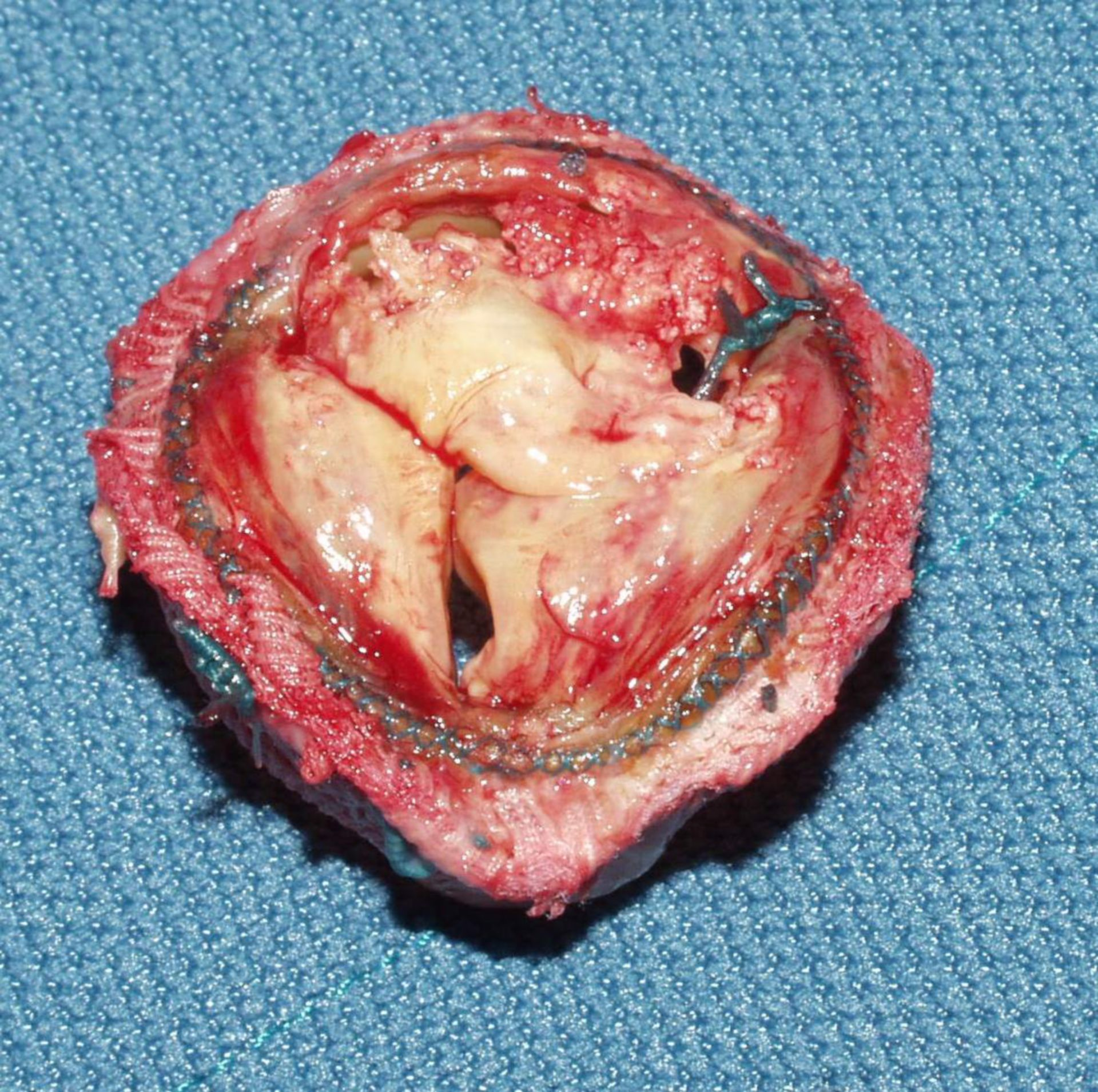 Reconstruction of aortic valve after 'David' (fig. 3a)