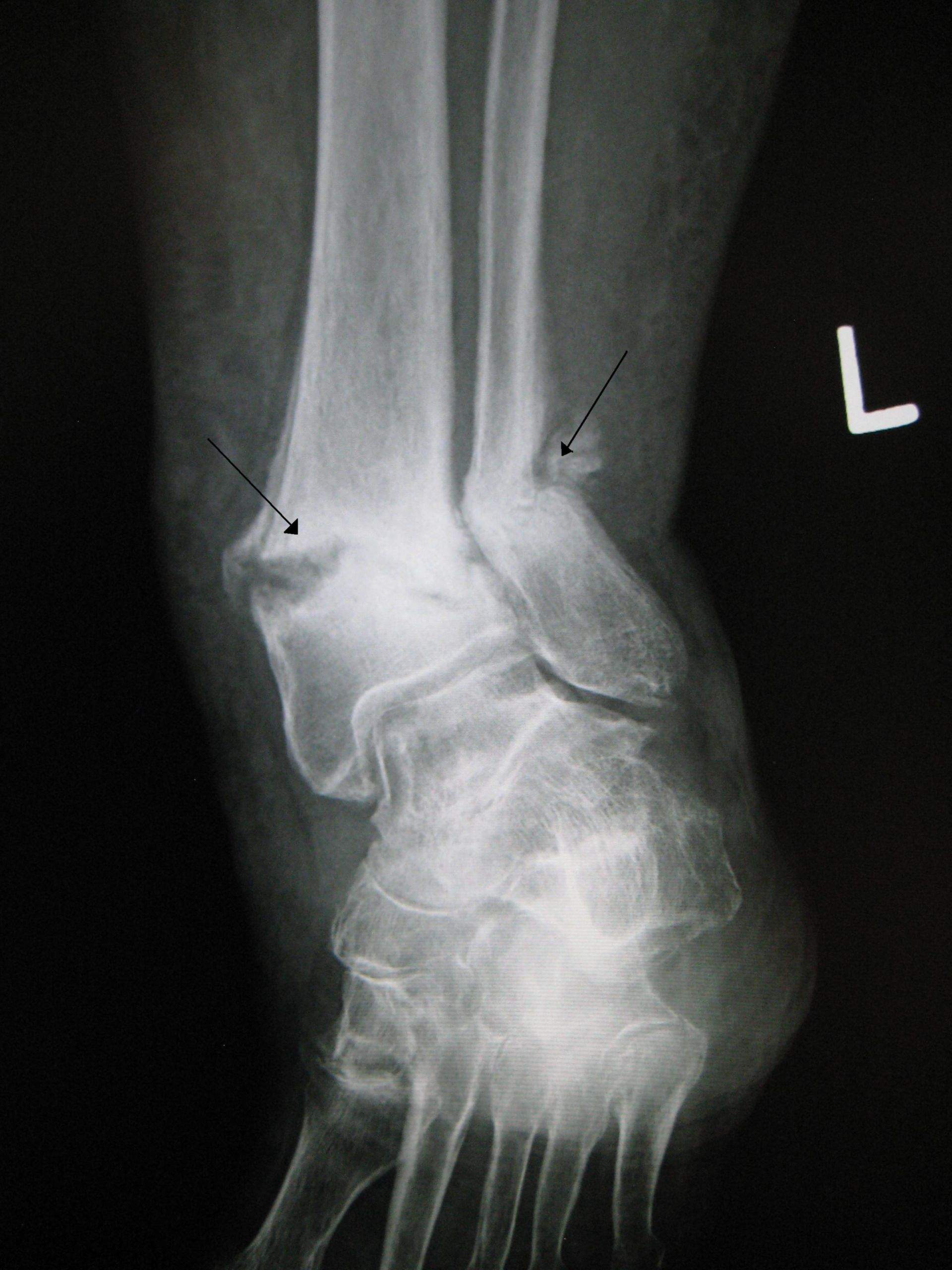 Old fracture