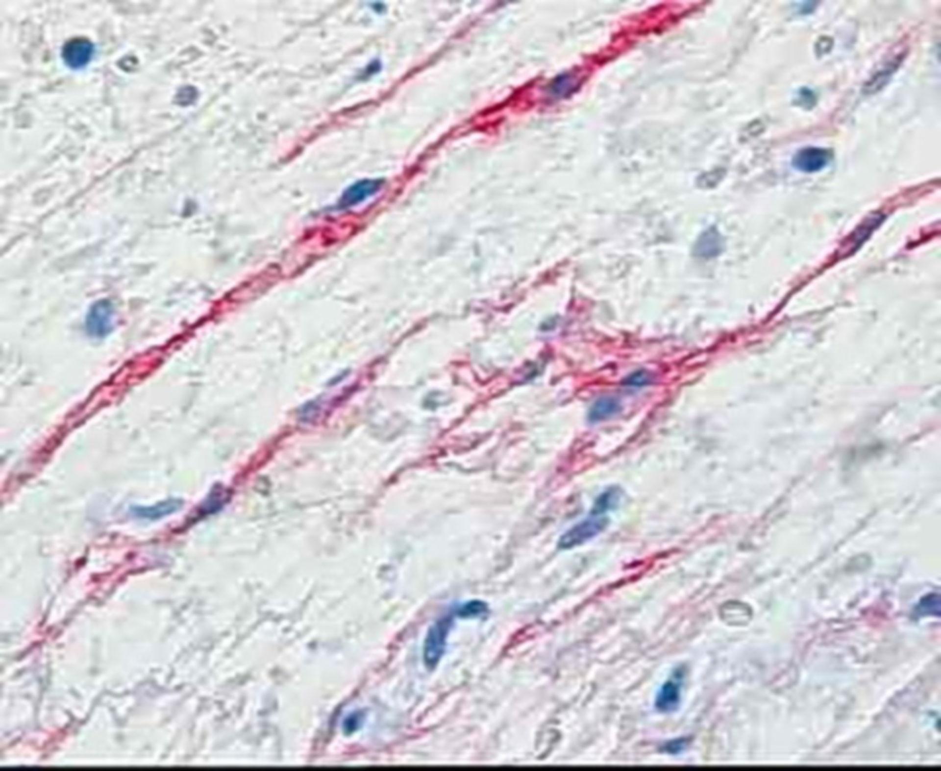 Oligodendroglia Typ 4 nach Rio Hortega