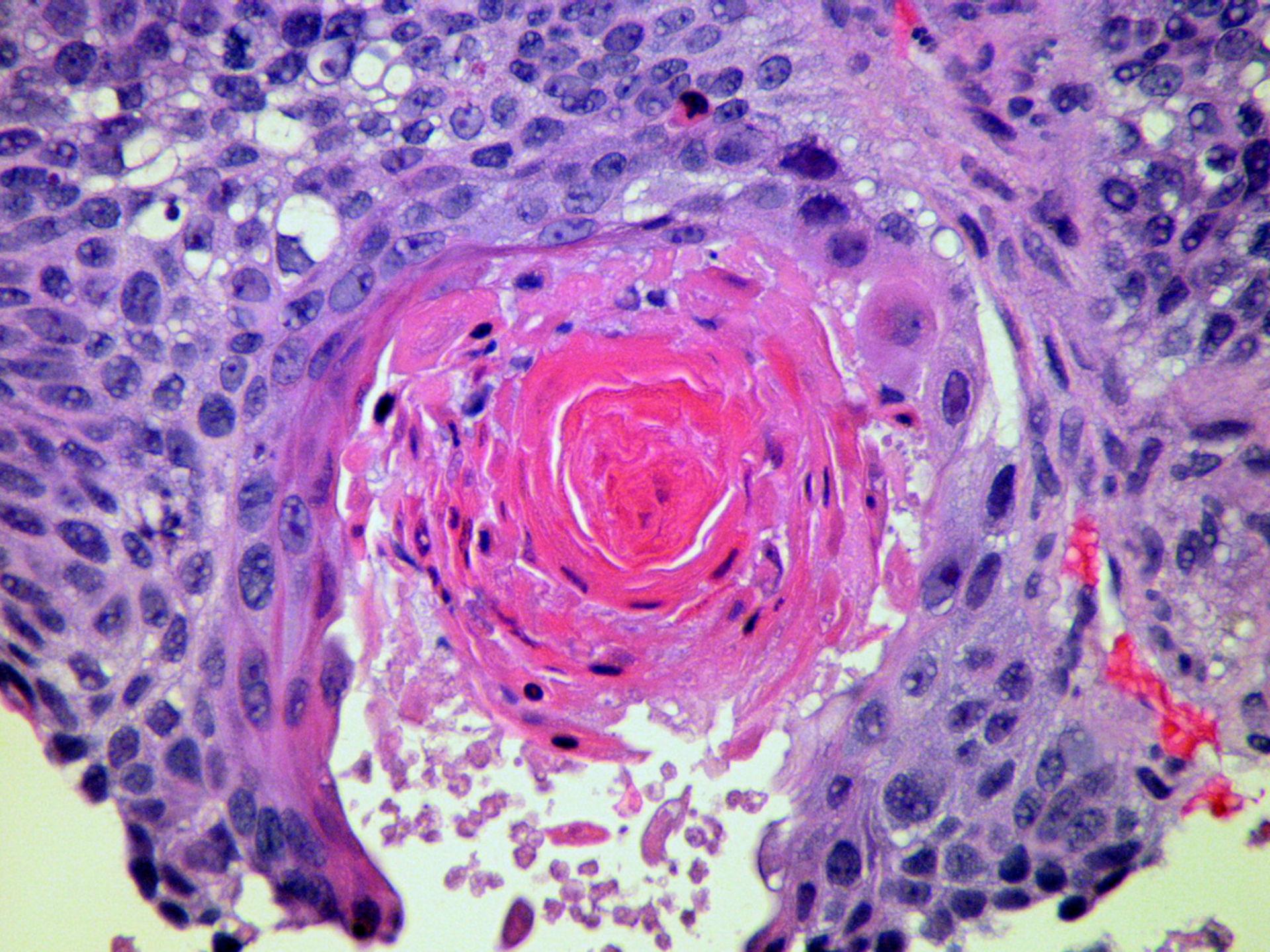 Carcinoma spinocellulare (calloso)