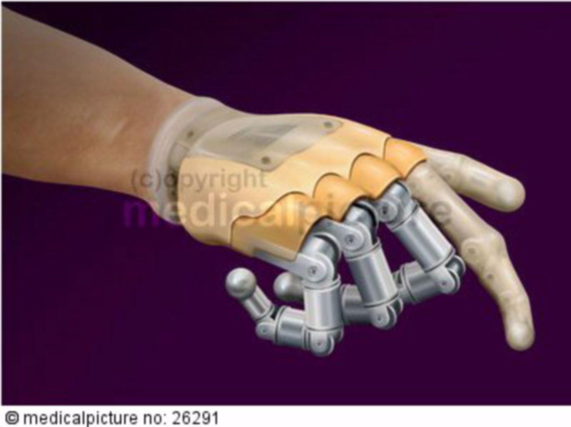 Modellierung einer Handprothese