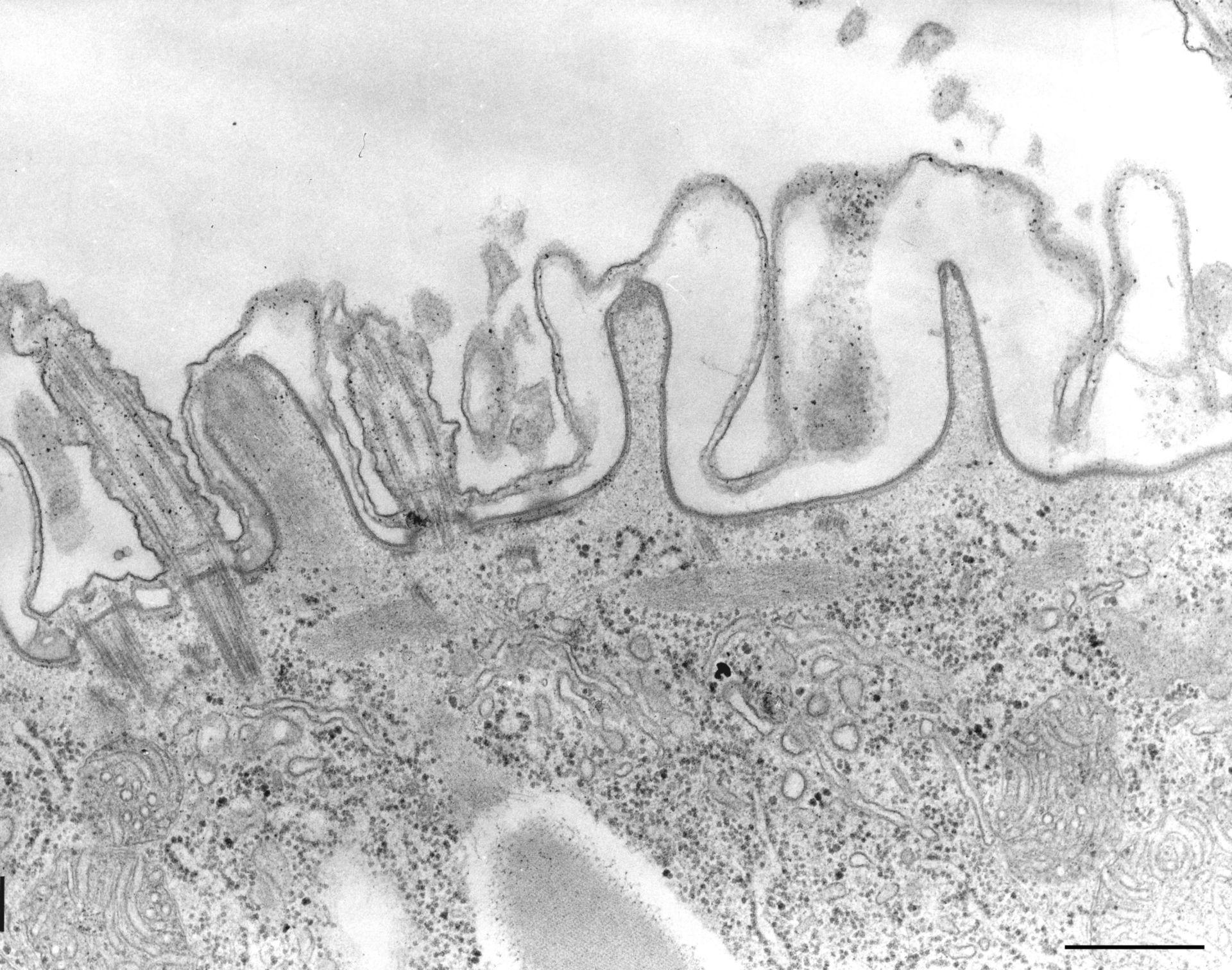 Paramecium caudatum (endosoma superficiale) - CIL:36767