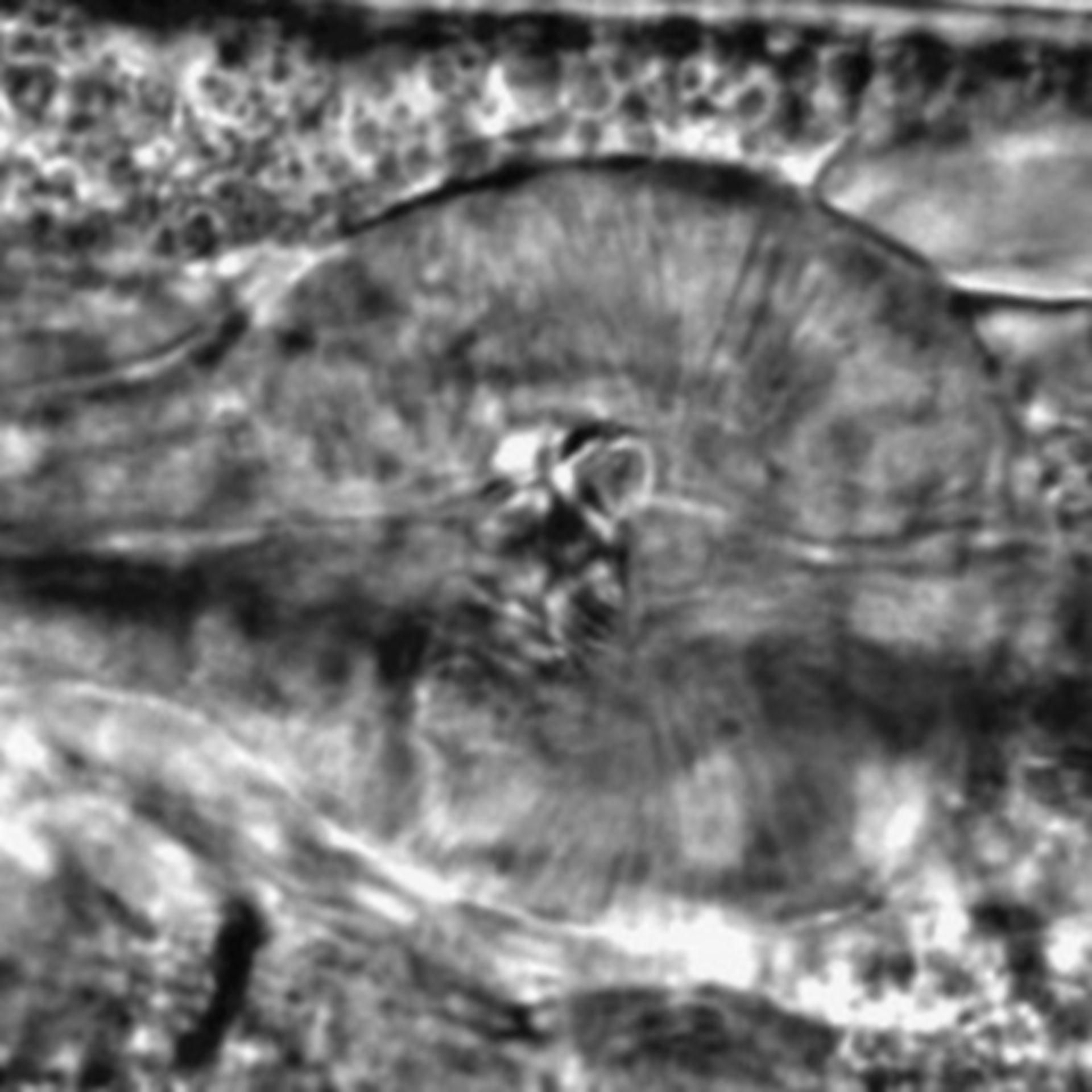 Caenorhabditis elegans - CIL:2198