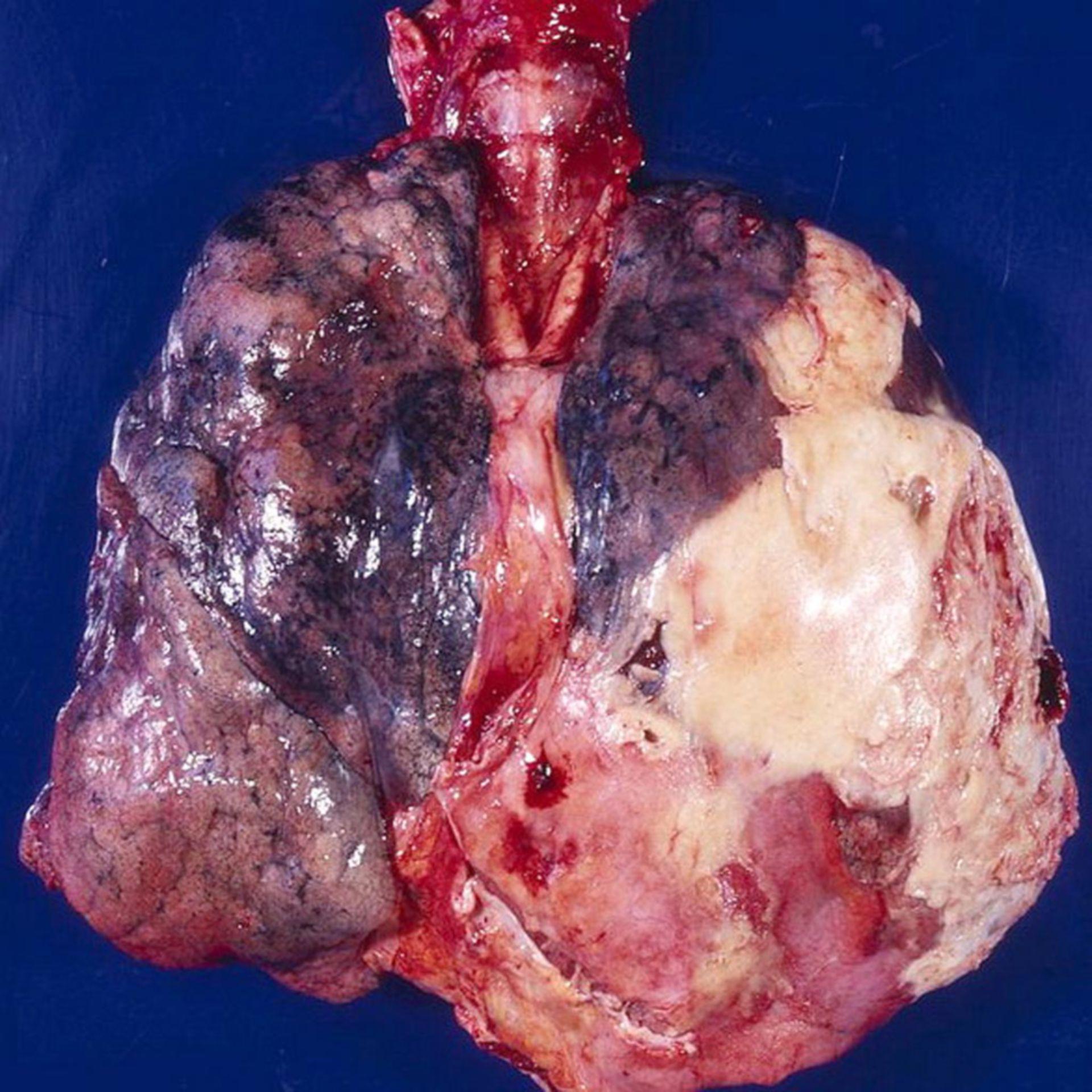 Empiema, polmone