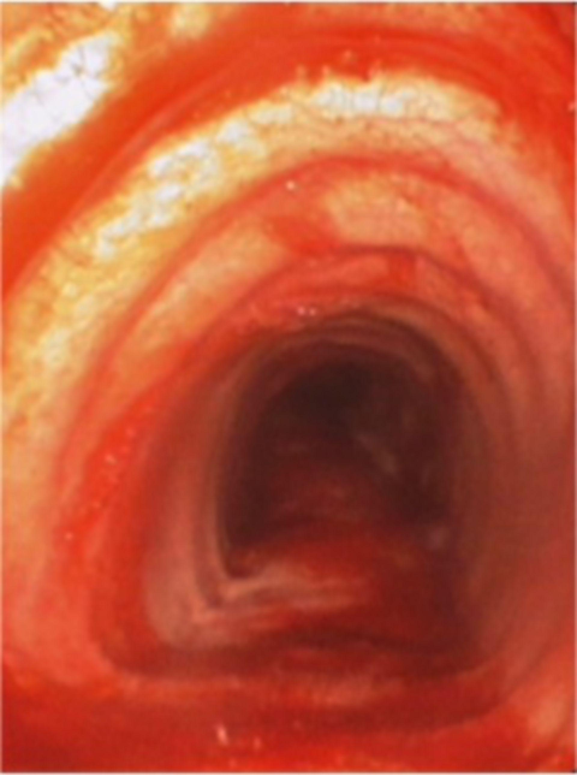 Endobronchiale Blutung