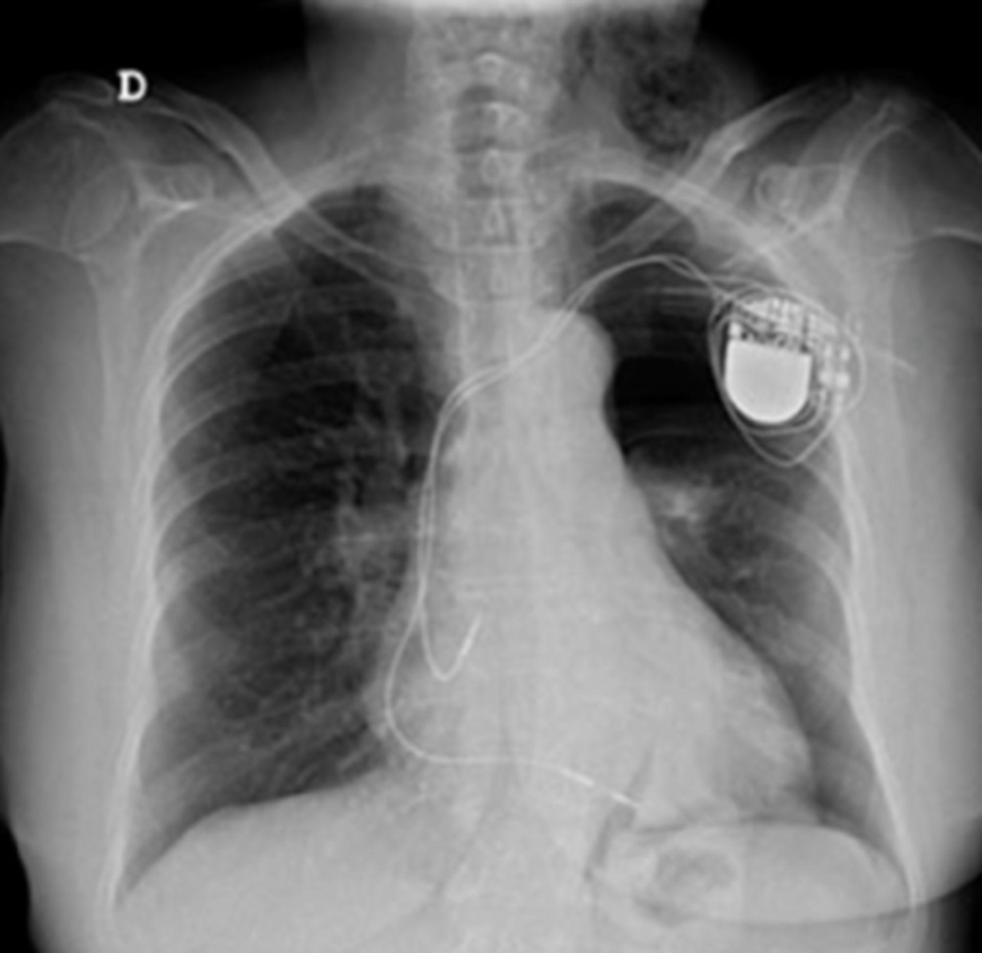 Radiografía simple