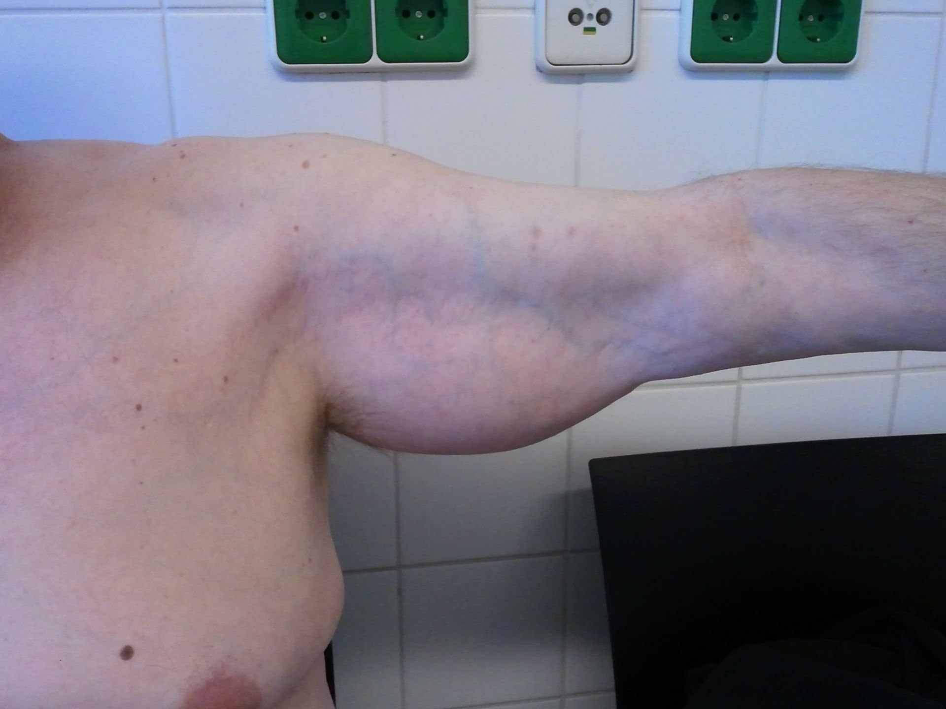 liposarcoma of the left upper arm