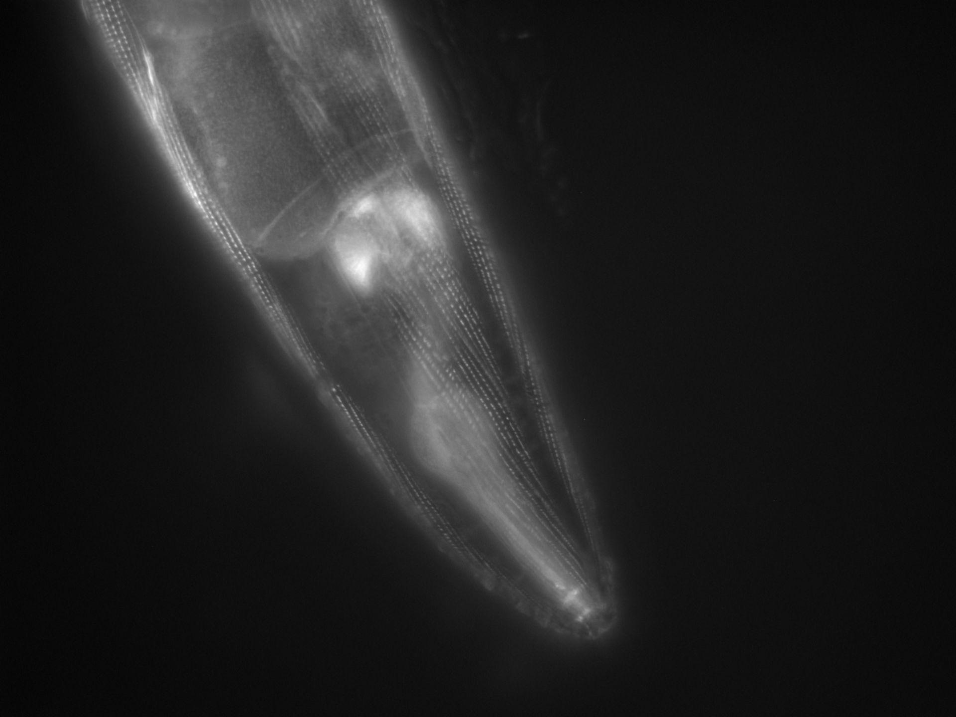 Caenorhabditis elegans (Actin filament) - CIL:1118